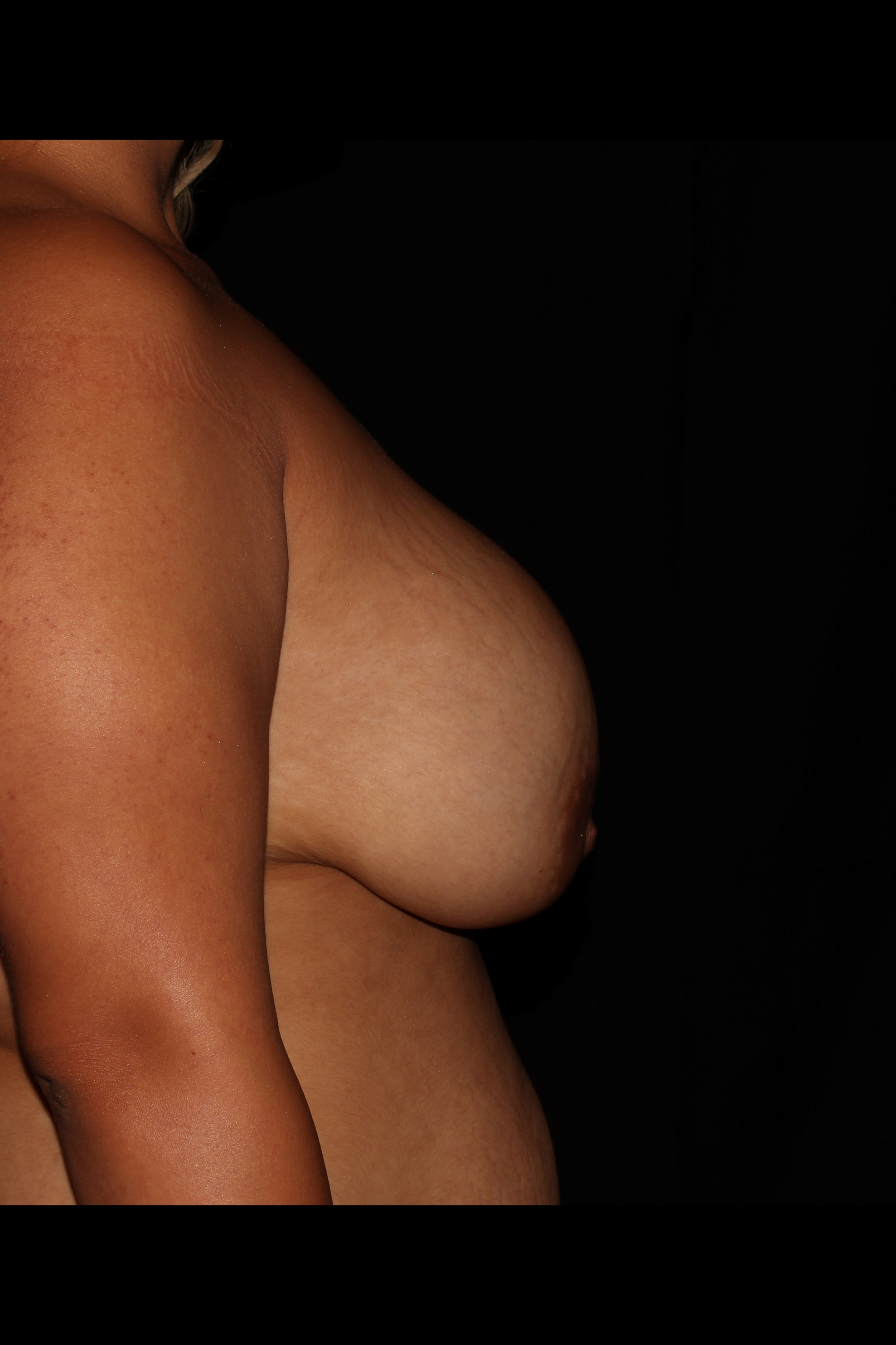 Before Breast Lift - Side