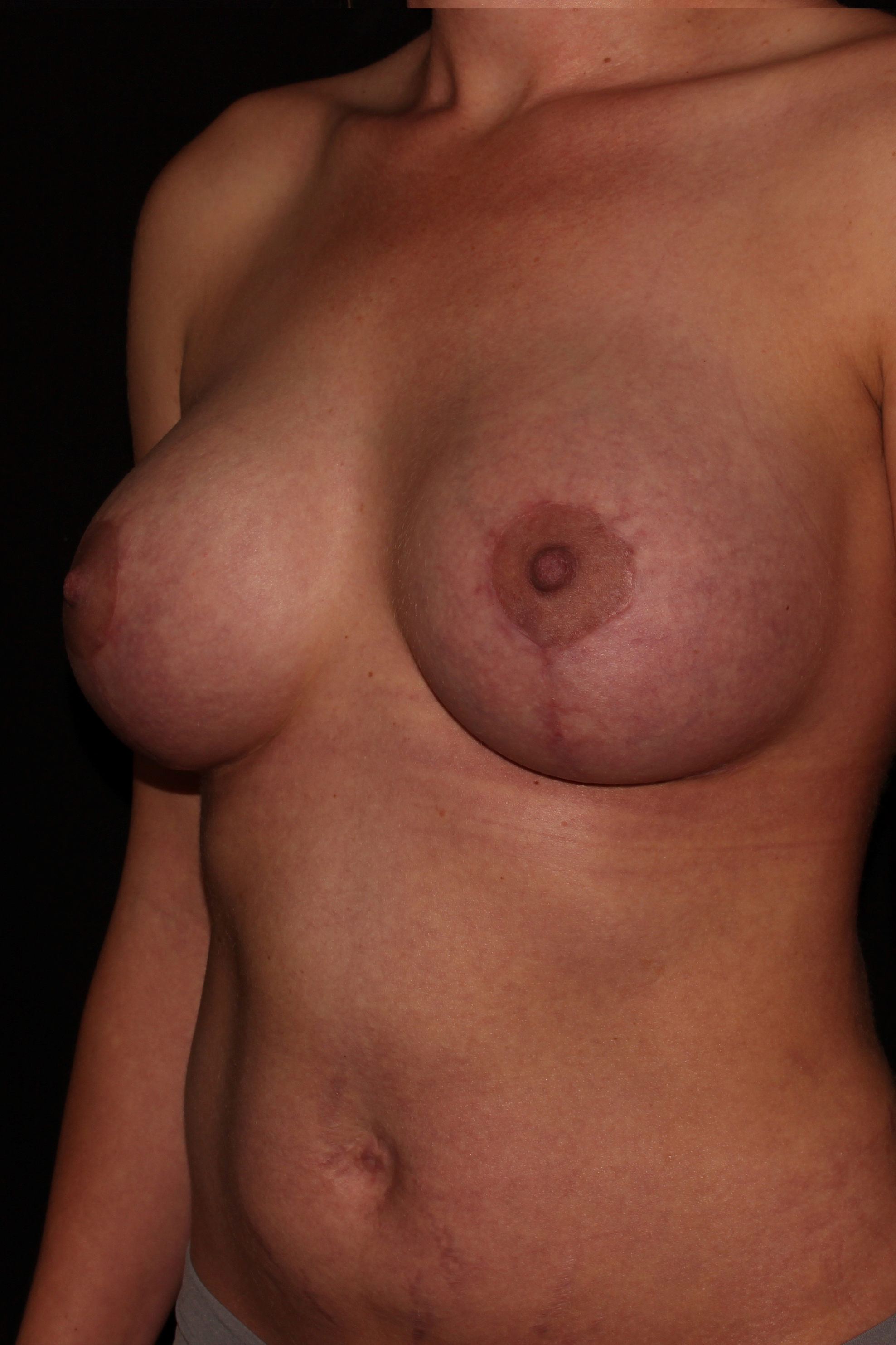 After Breast Augmentation with Lift - Oblique