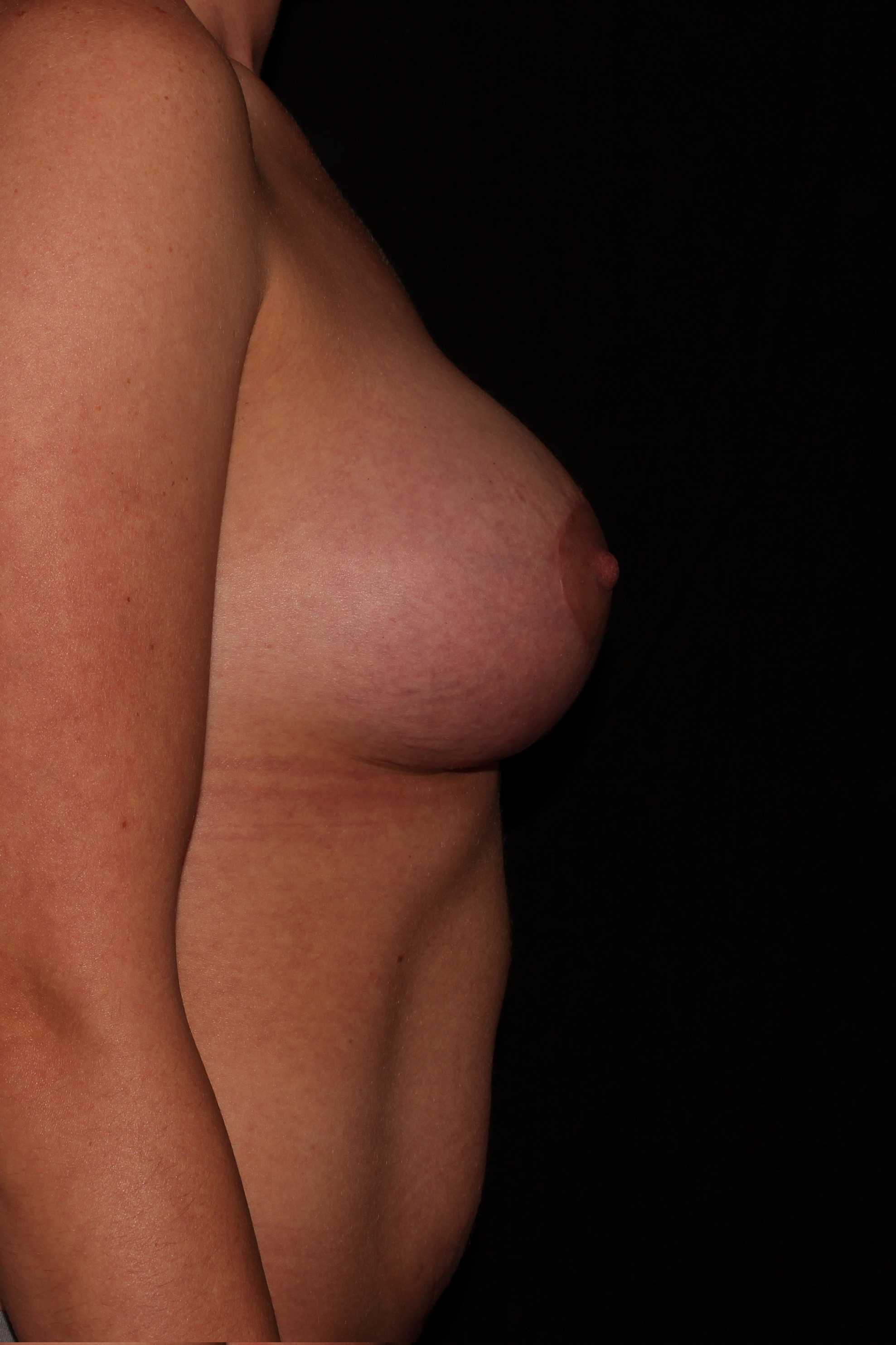 After Breast Augmentation with Lift - Side