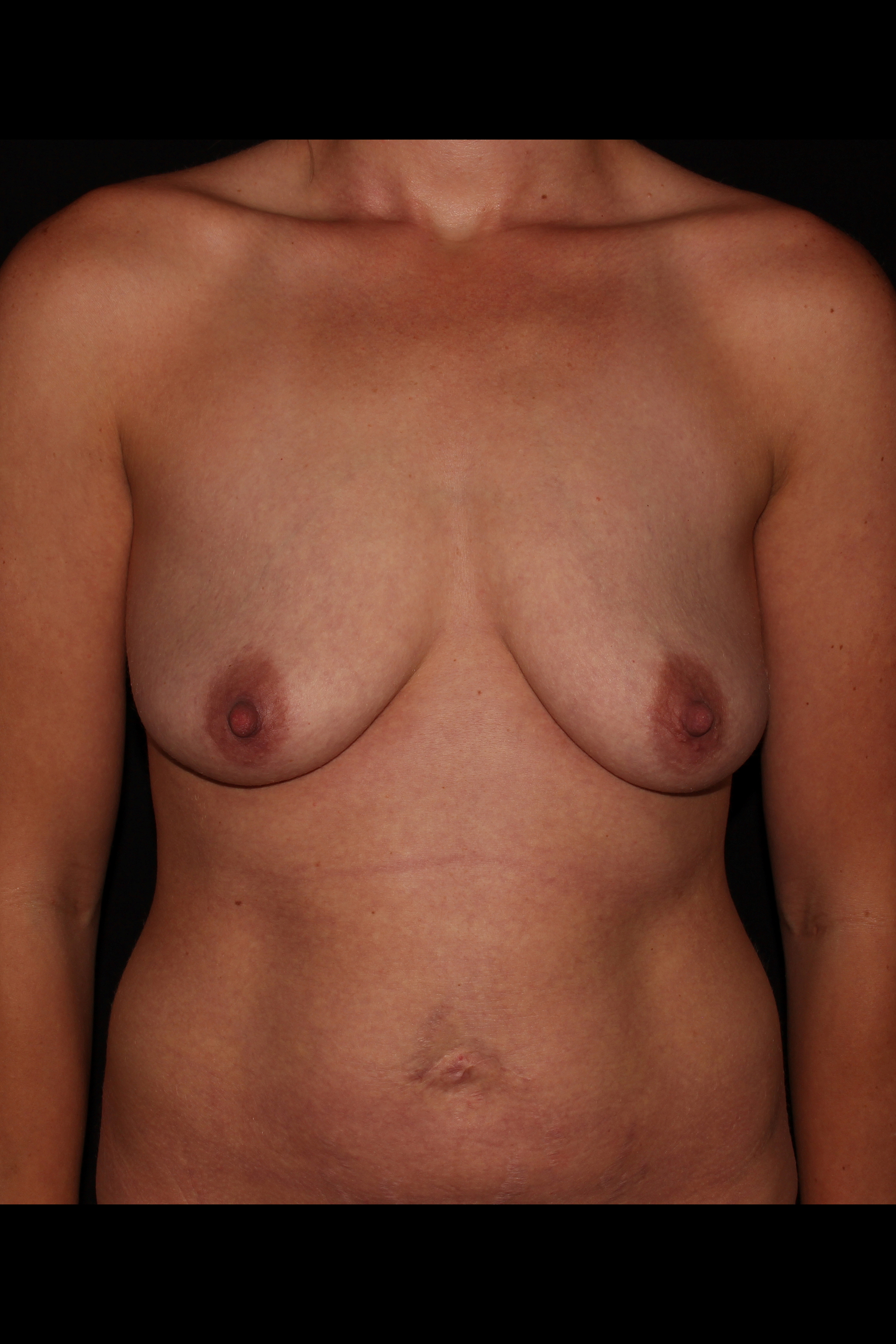 Before Breast Augmentation with Lift - Breast lift with augmentation