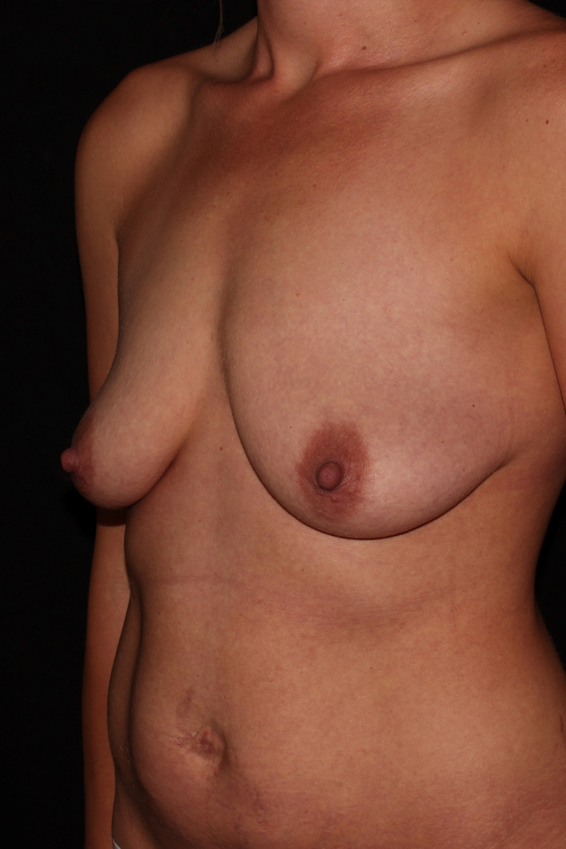 Before Breast Augmentation with Lift - Oblique
