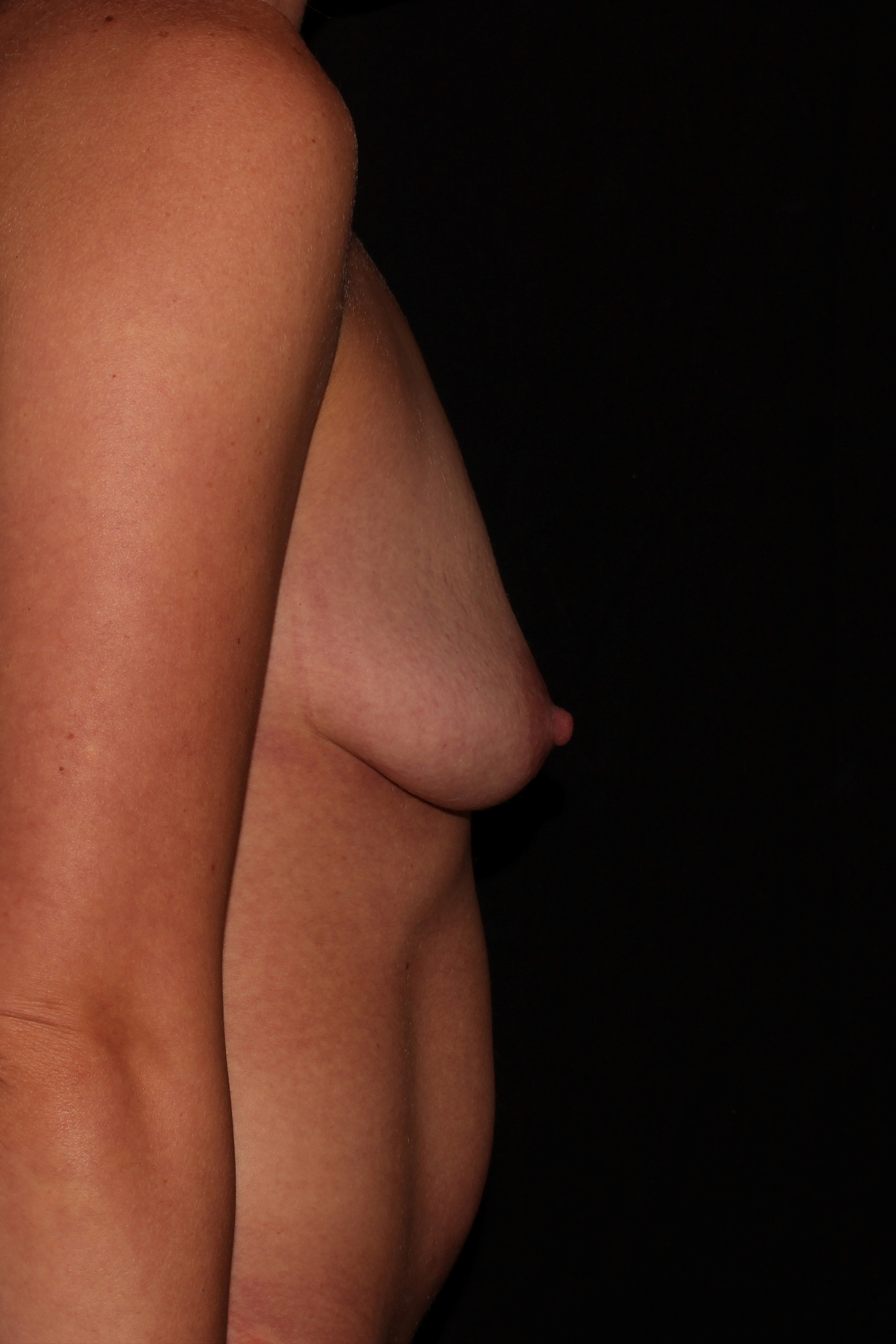 Before Breast Augmentation with Lift - Side