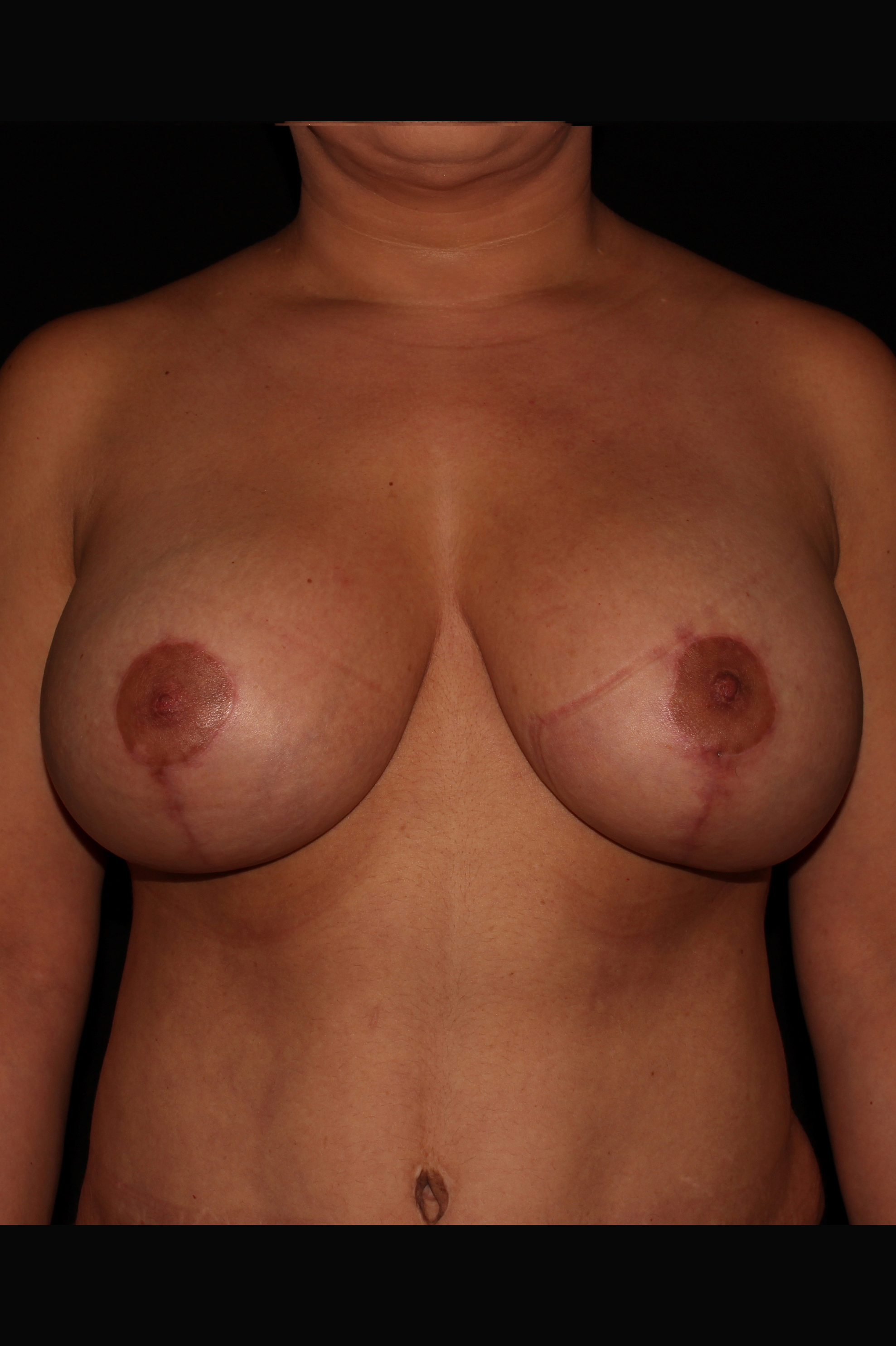 After Breast Augmentation with Lift - Breast lift with implants