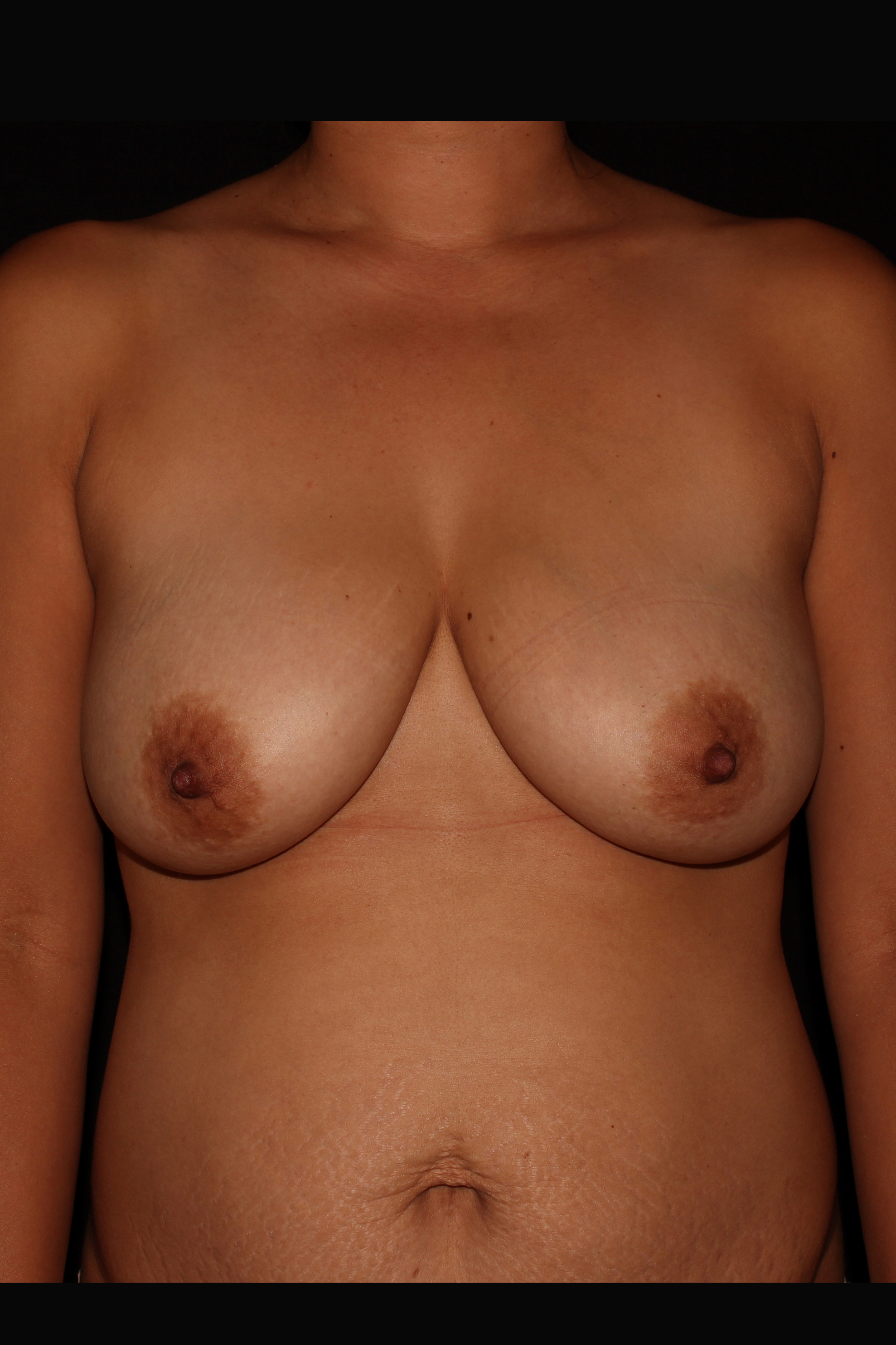 Before Breast Lift - Breast Lift without implants