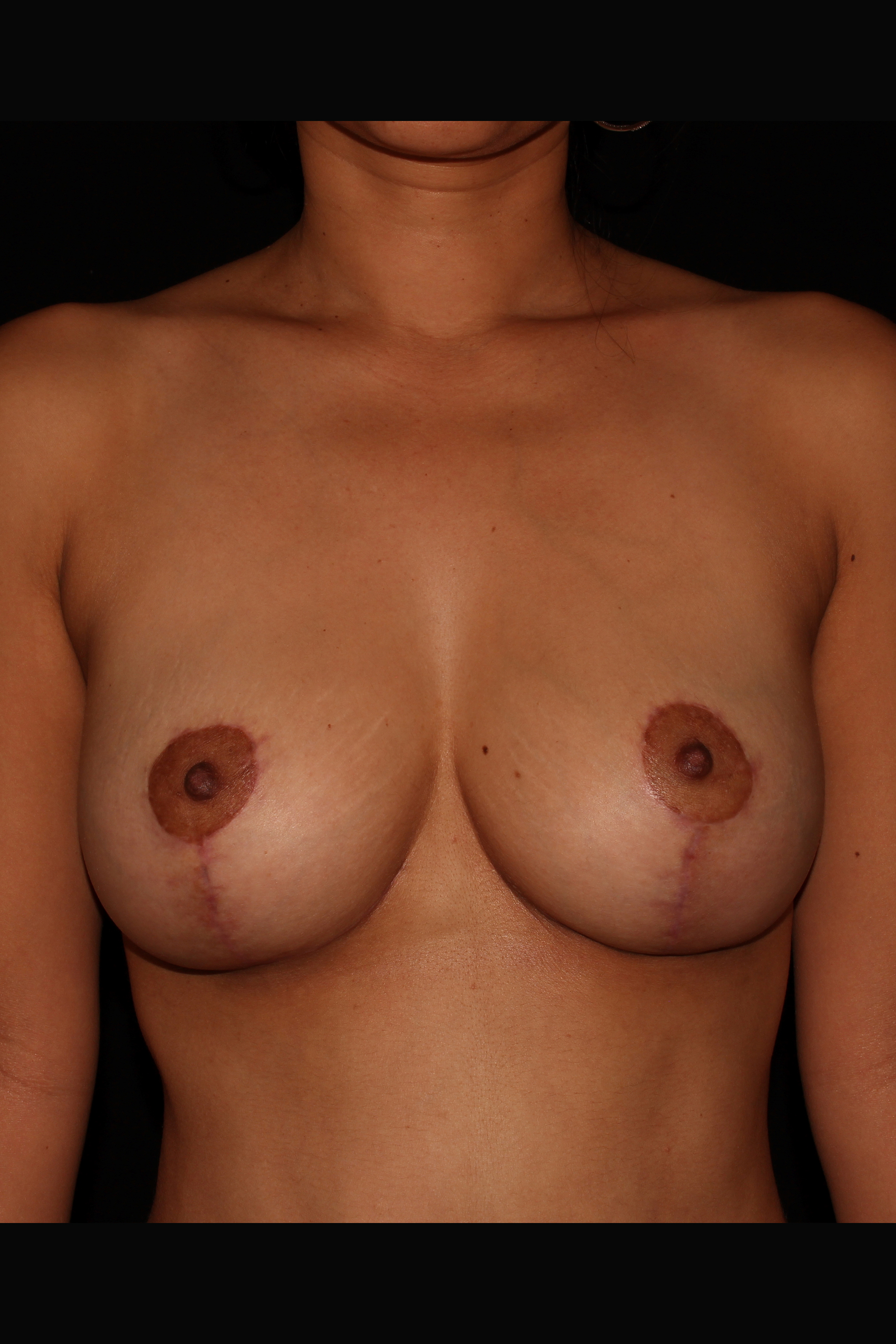 After Breast Lift - Breast Lift without implants