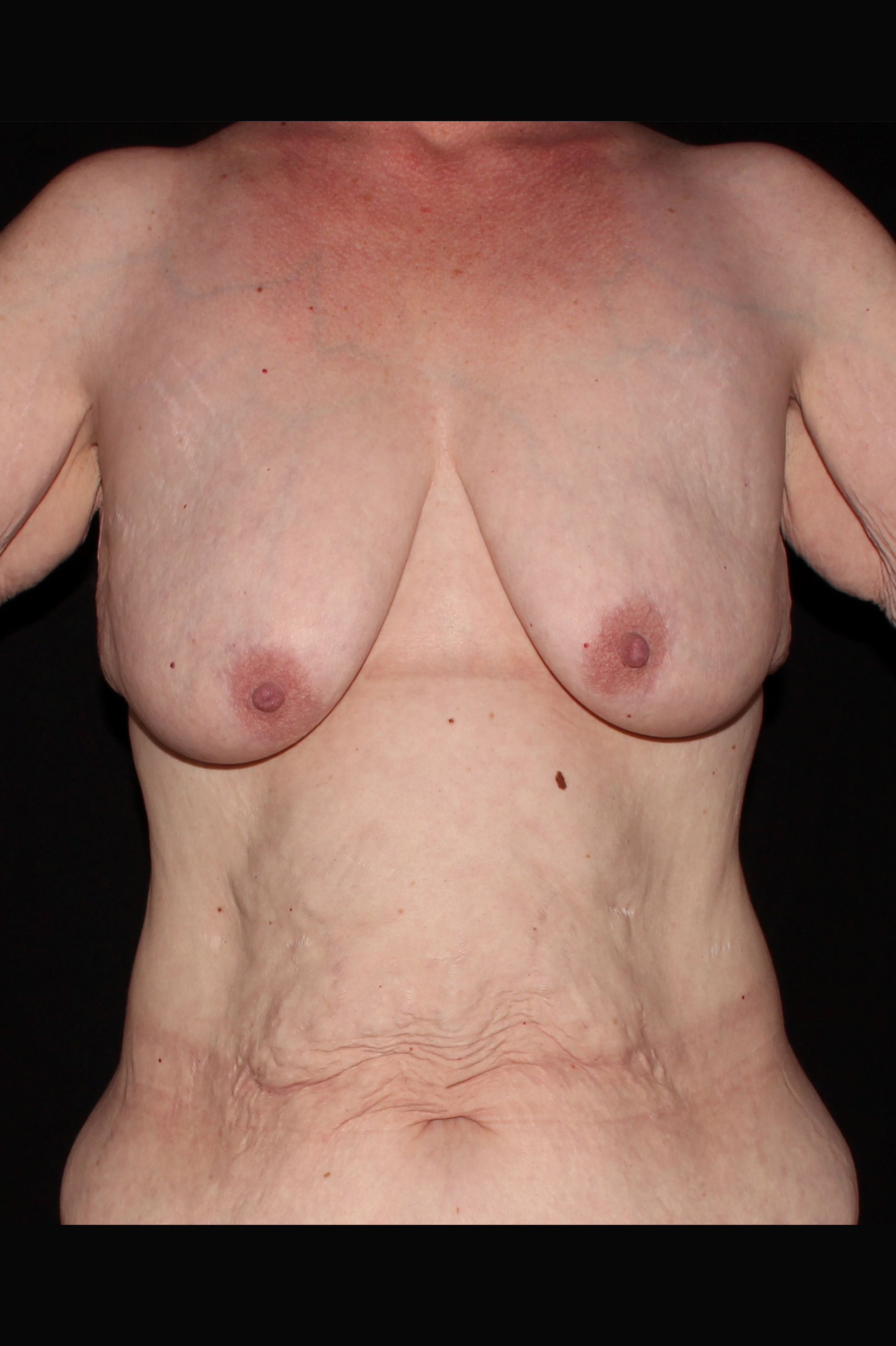Before Breast Augmentation with Lift - Breast Lift with implants