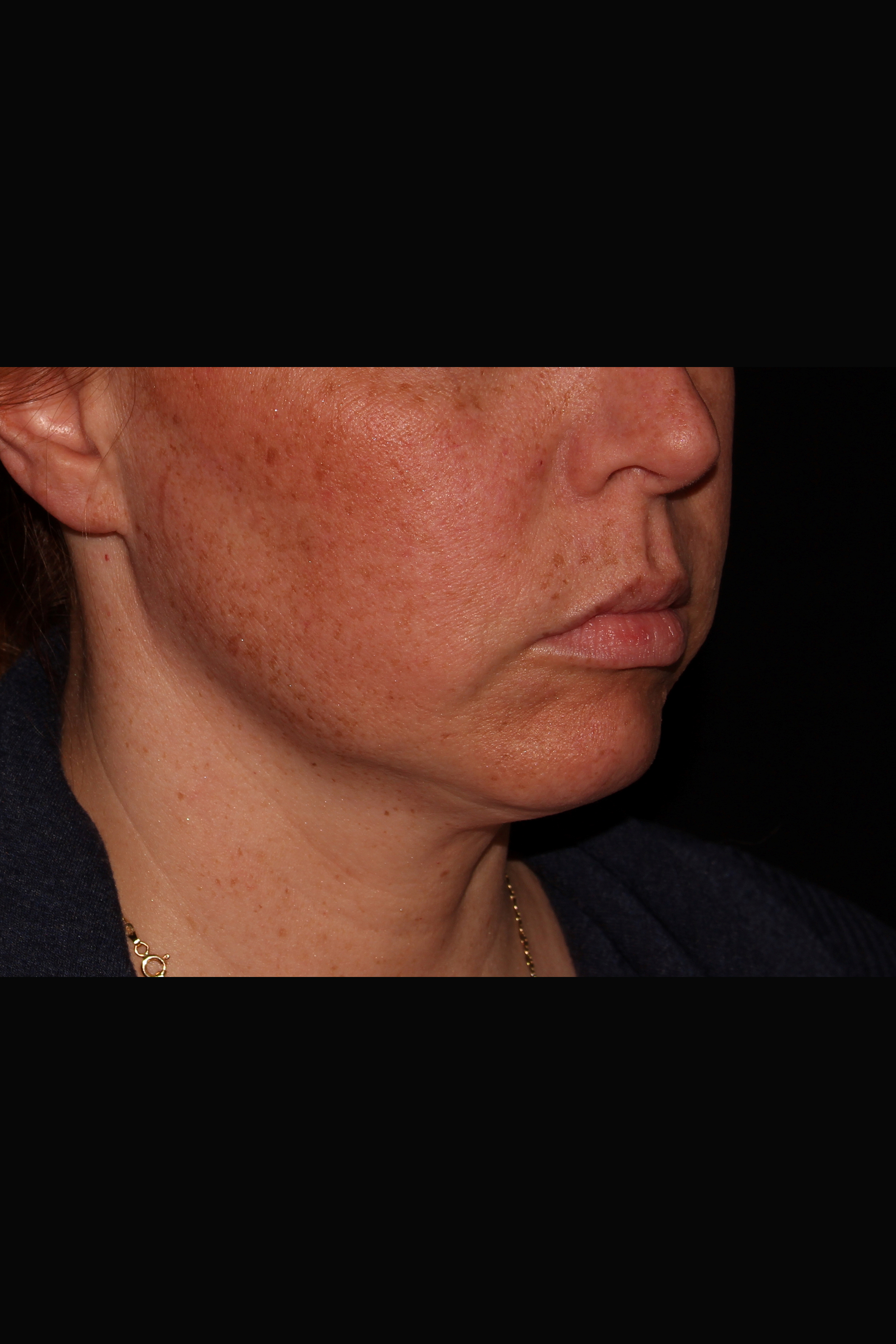 Before Magic Tight - Magic Tight to the Neck & Buccal Fat Pad Removal