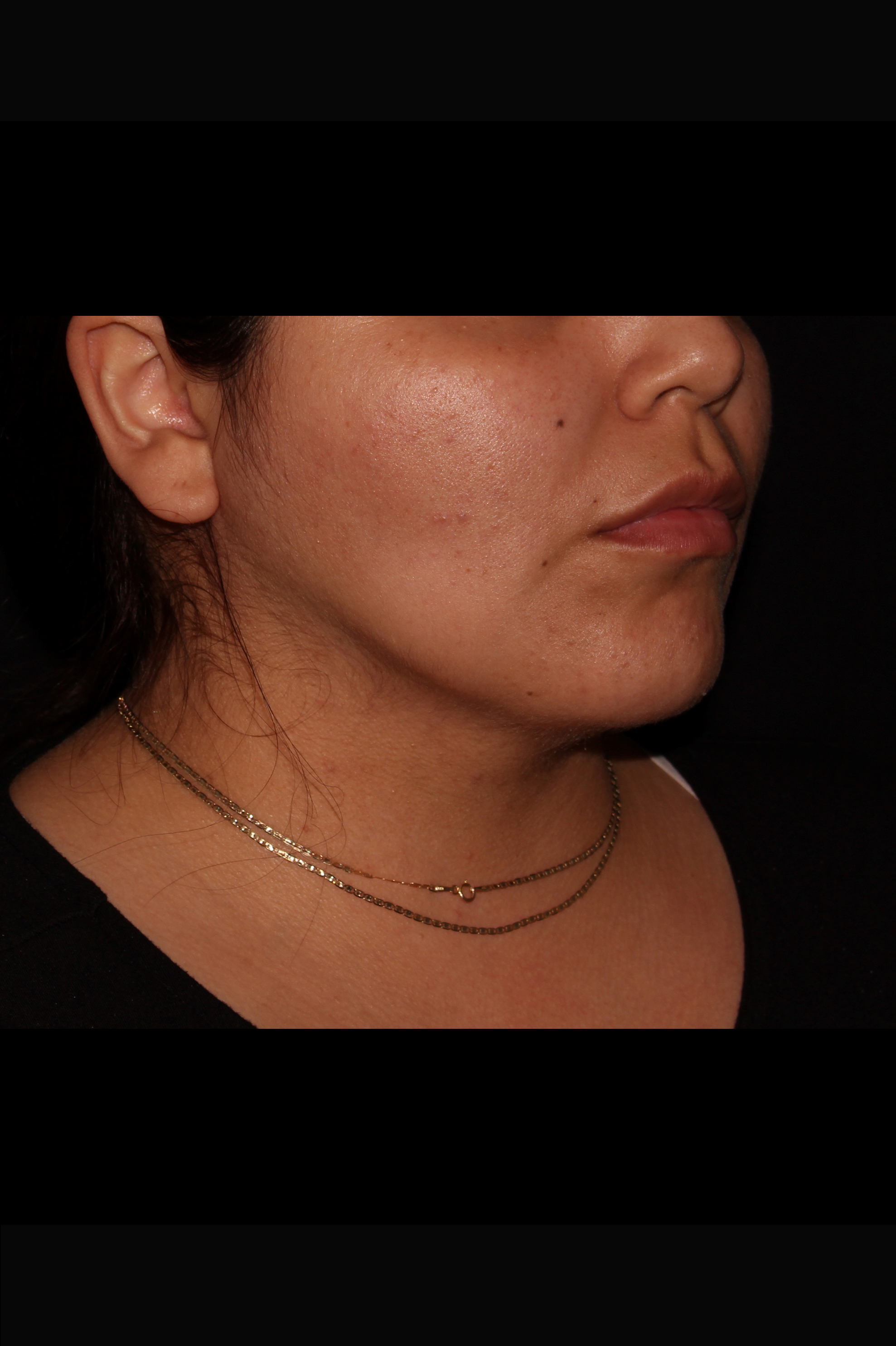 After Neck Liposuction - Oblique