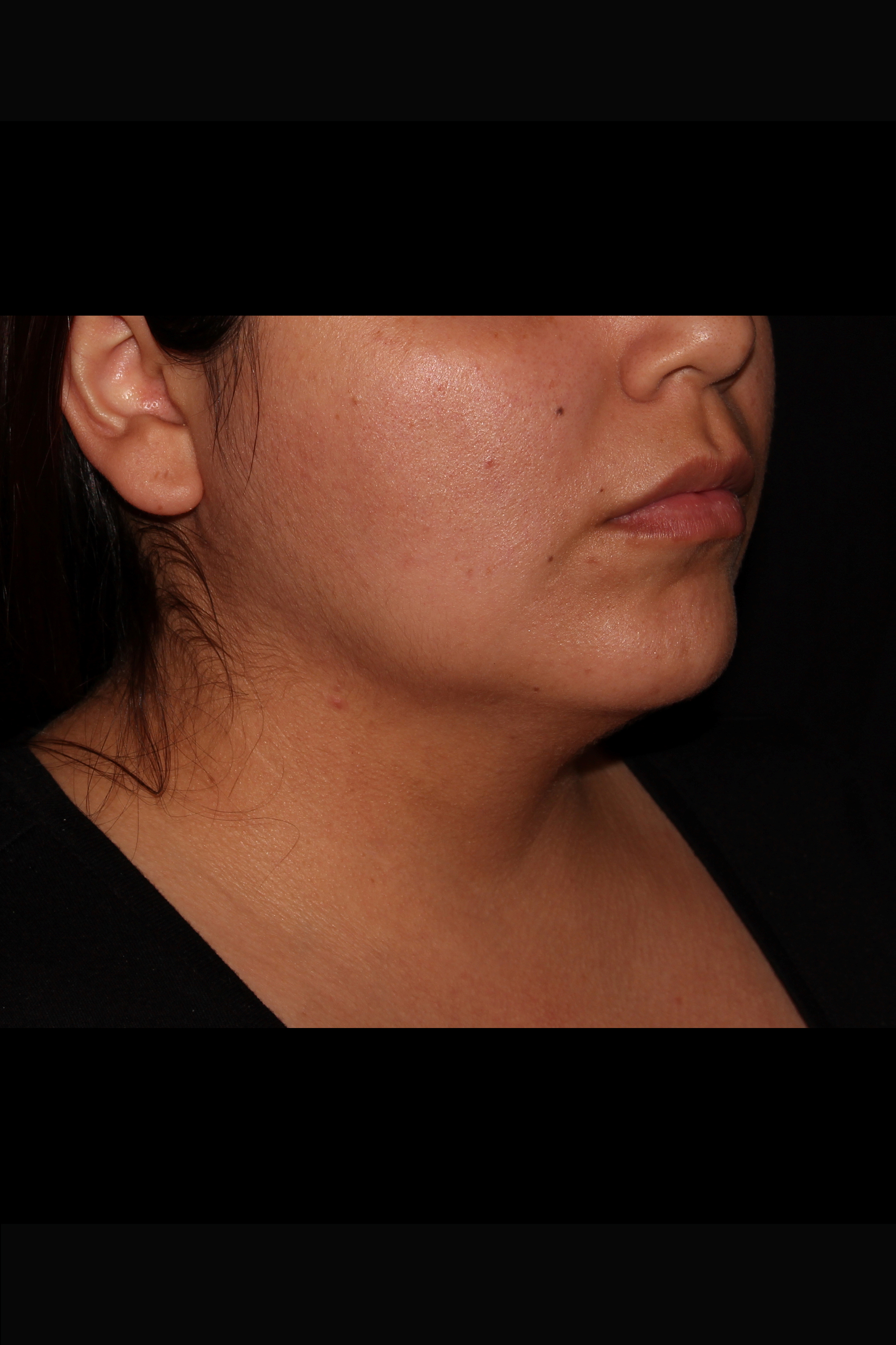 Before Neck Liposuction - Oblique