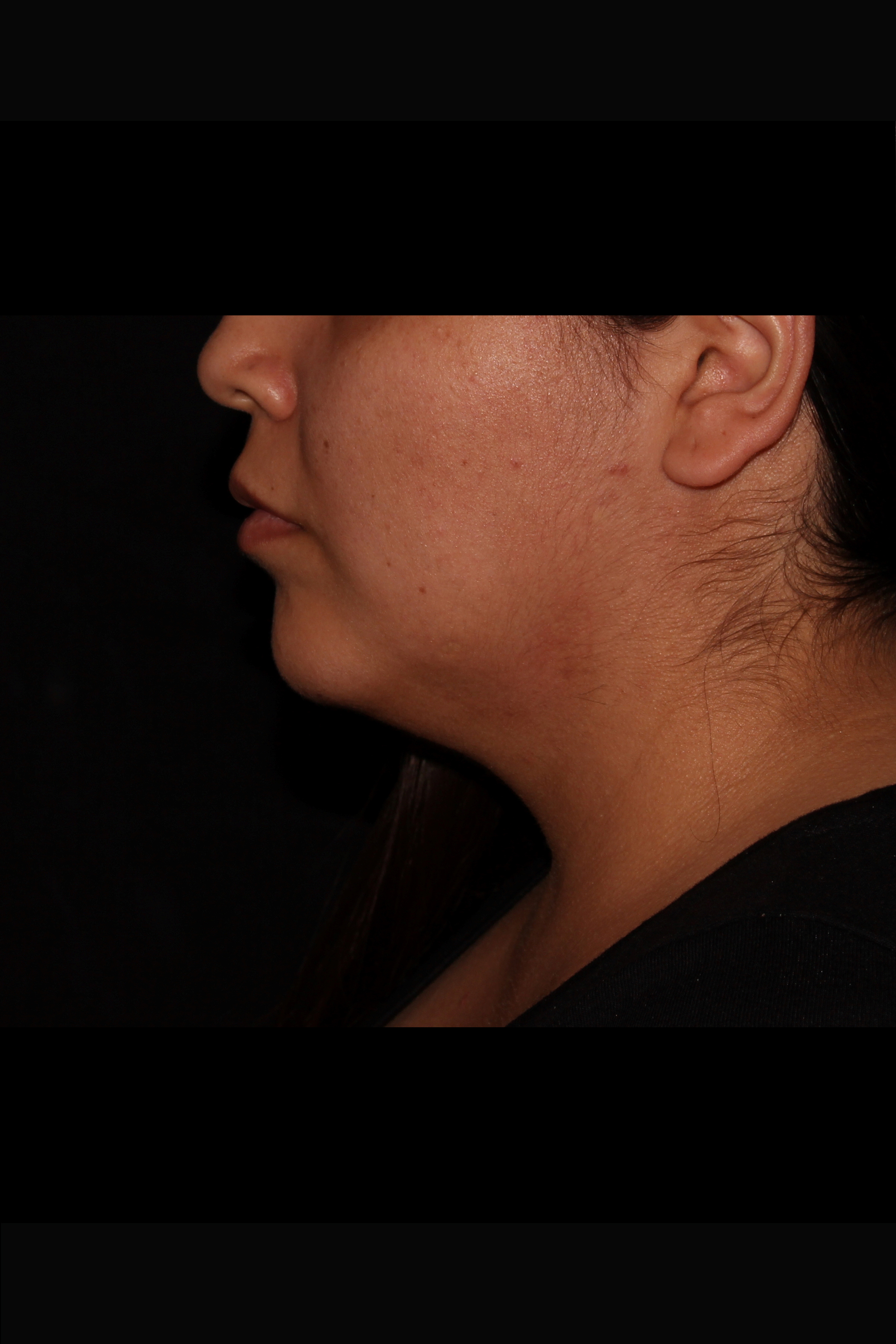 Before Neck Liposuction - Chin liposuction