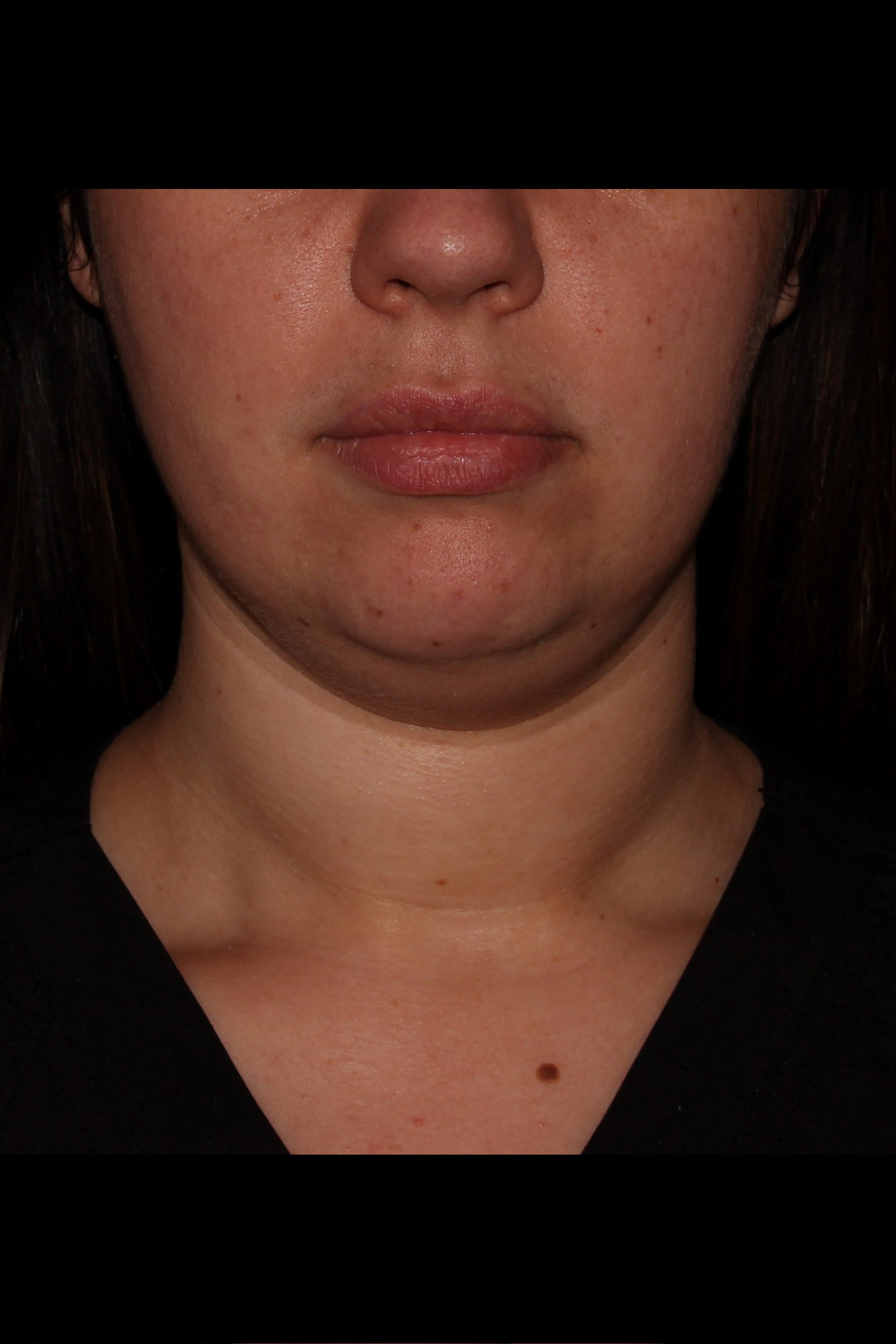 Before Neck Liposuction - Neck aka Chin liposuction & Buccal Fat Pad Removal