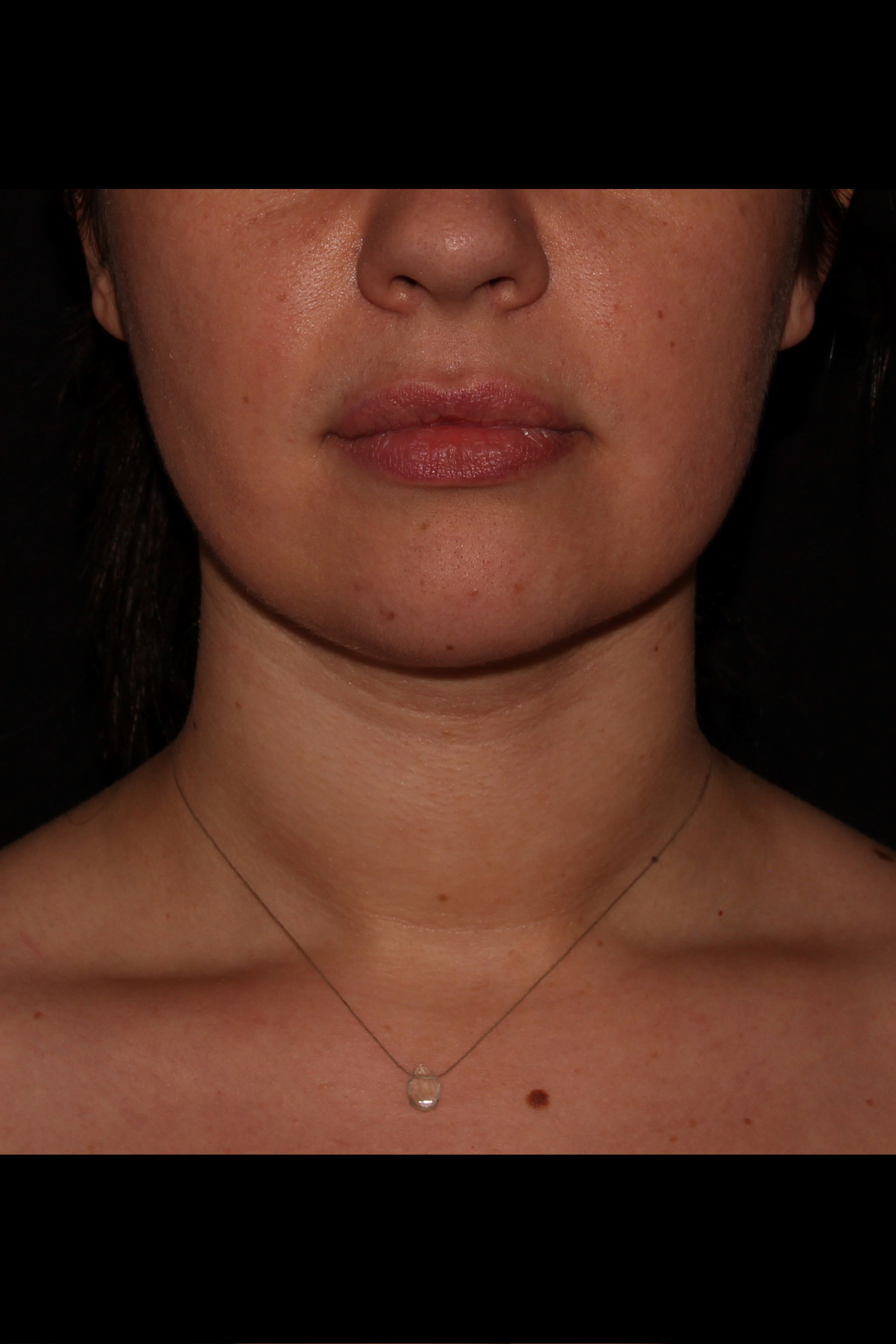 After Neck Liposuction - Neck aka Chin liposuction & Buccal Fat Pad Removal