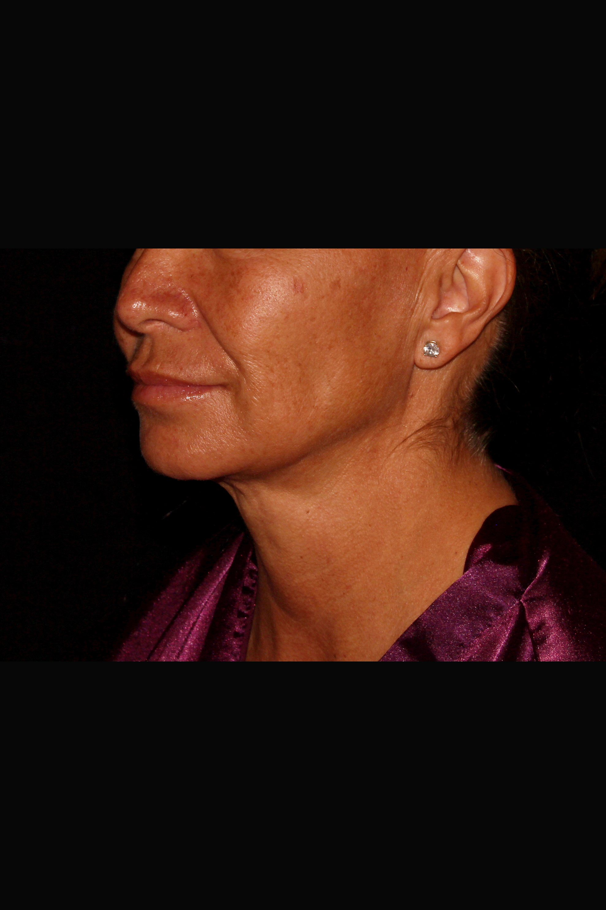 After Neck Liposuction - Magic Tight to the Neck & Buccal Fat Pad Removal