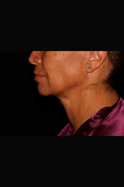 After Neck Liposuction - Side