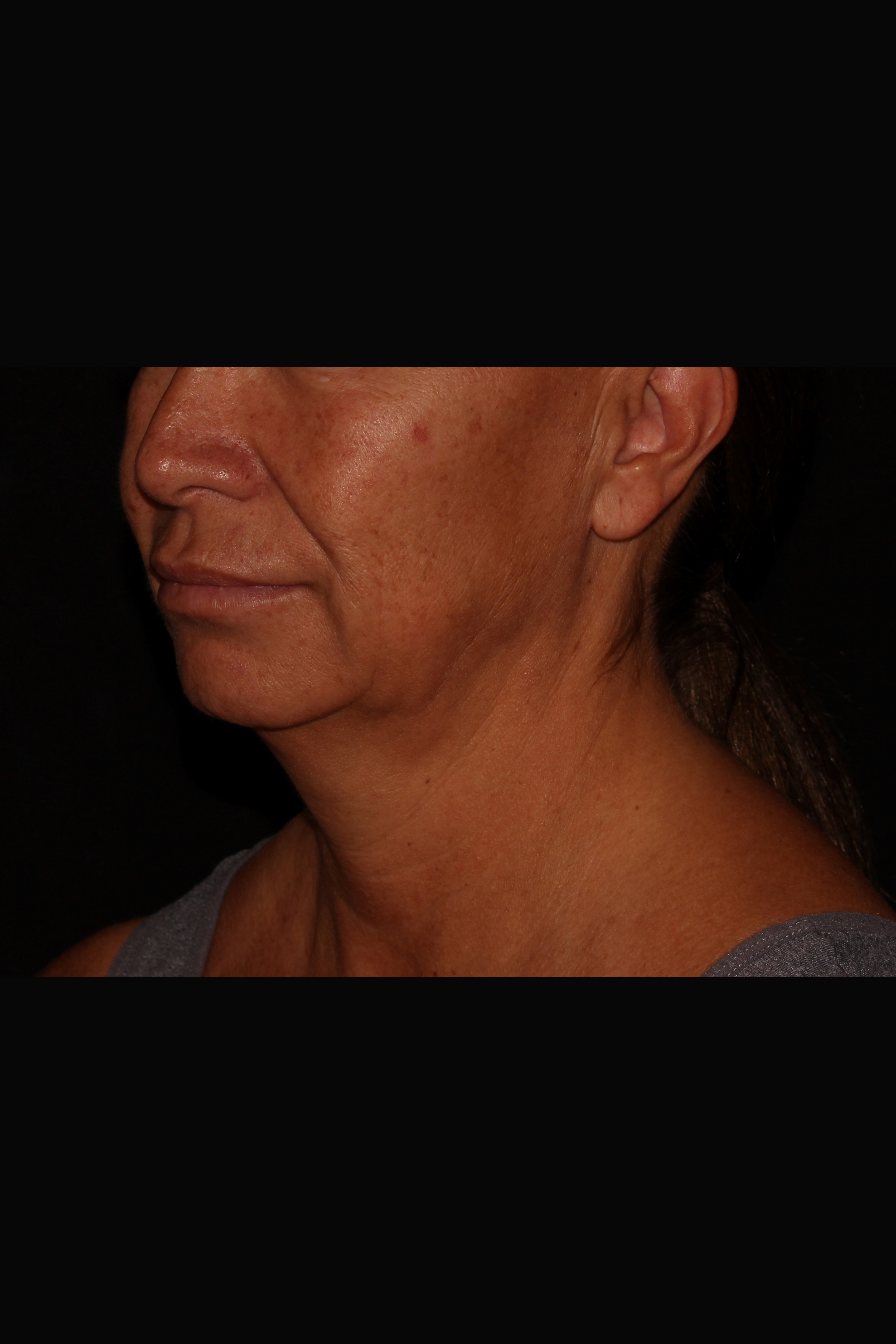Before Neck Liposuction - Magic Tight to the Neck & Buccal Fat Pad Removal
