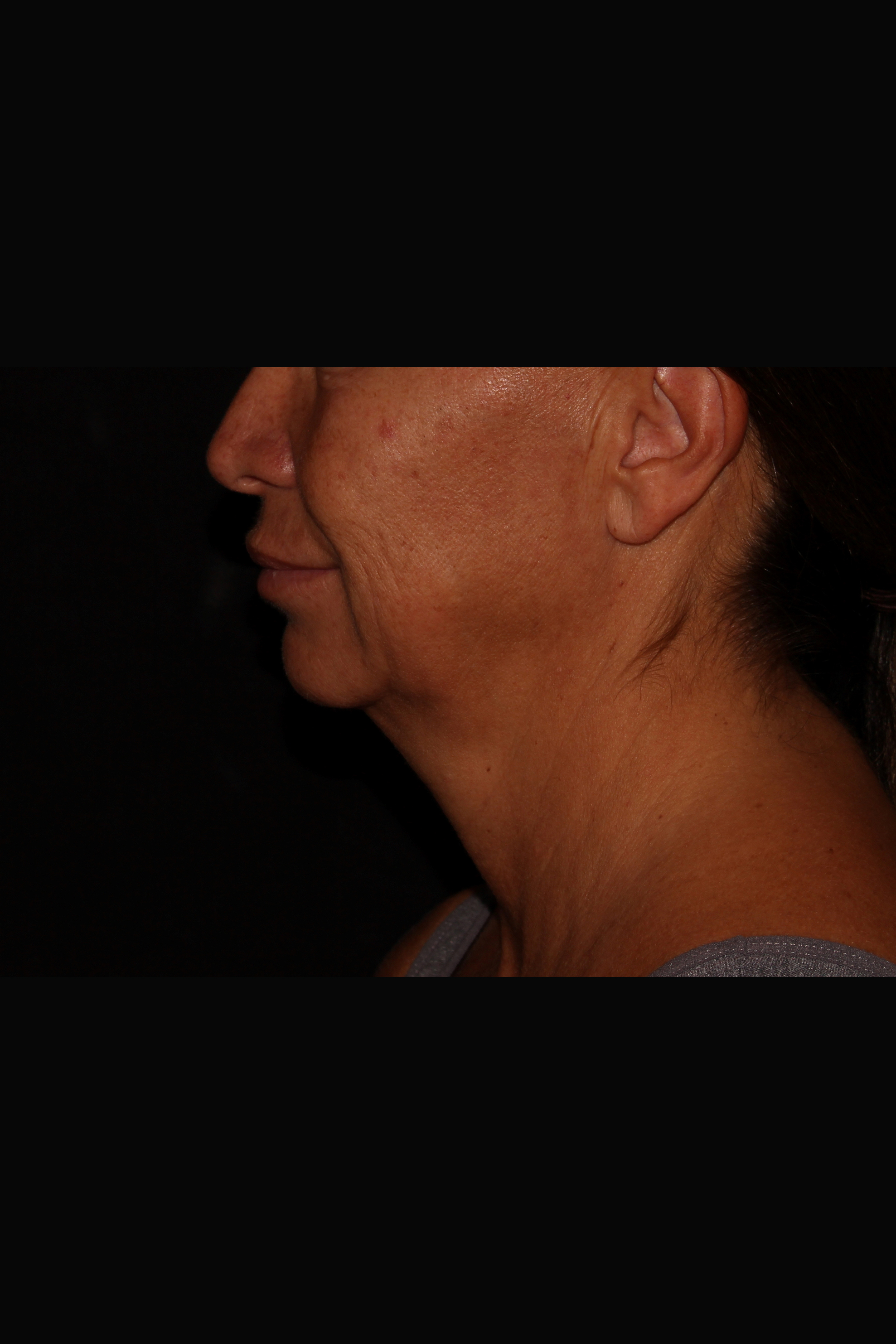 Before Neck Liposuction - Side