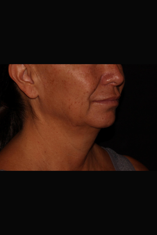 Before Neck Liposuction - Oblique