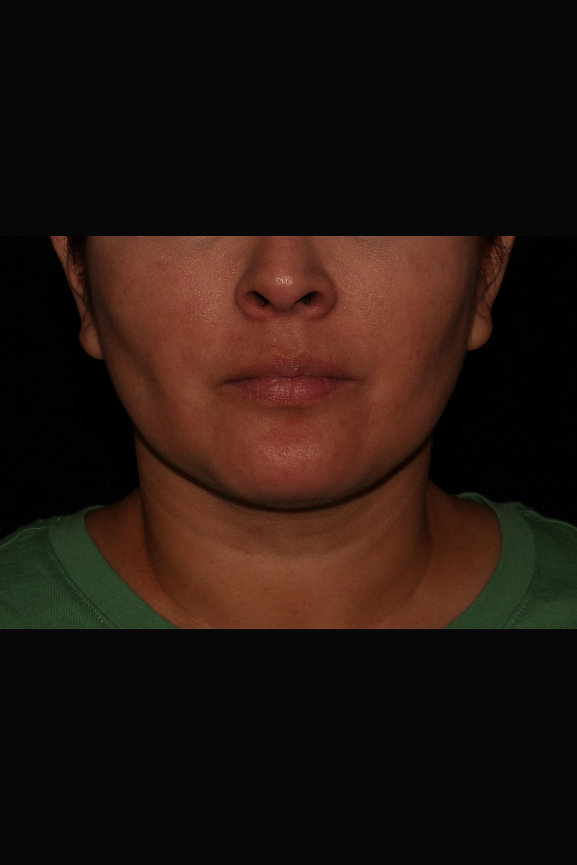 After Neck Liposuction - Front