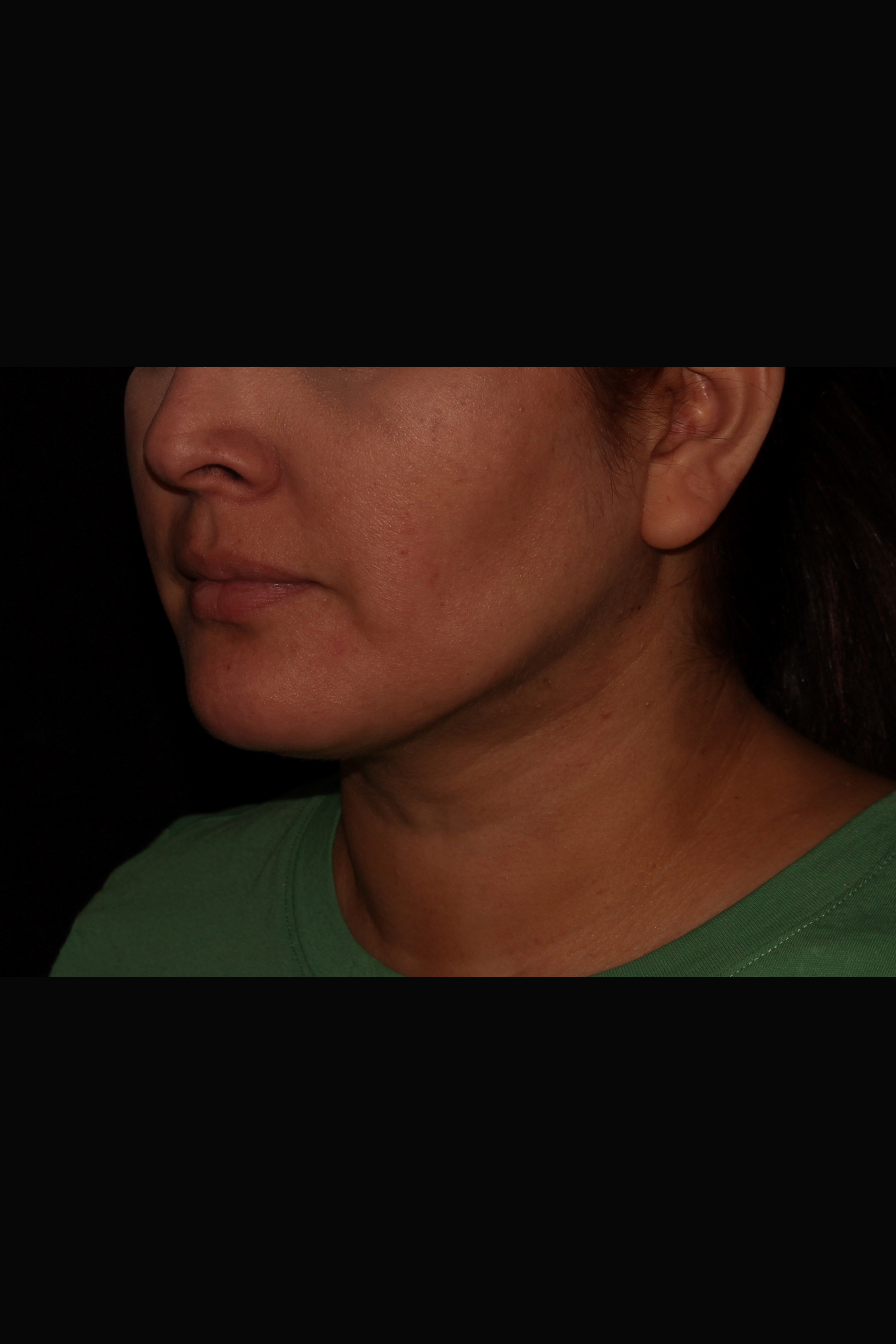 After Neck Liposuction - Neck Liposuction, Magic Tight & Buccal Fat Pad Removal