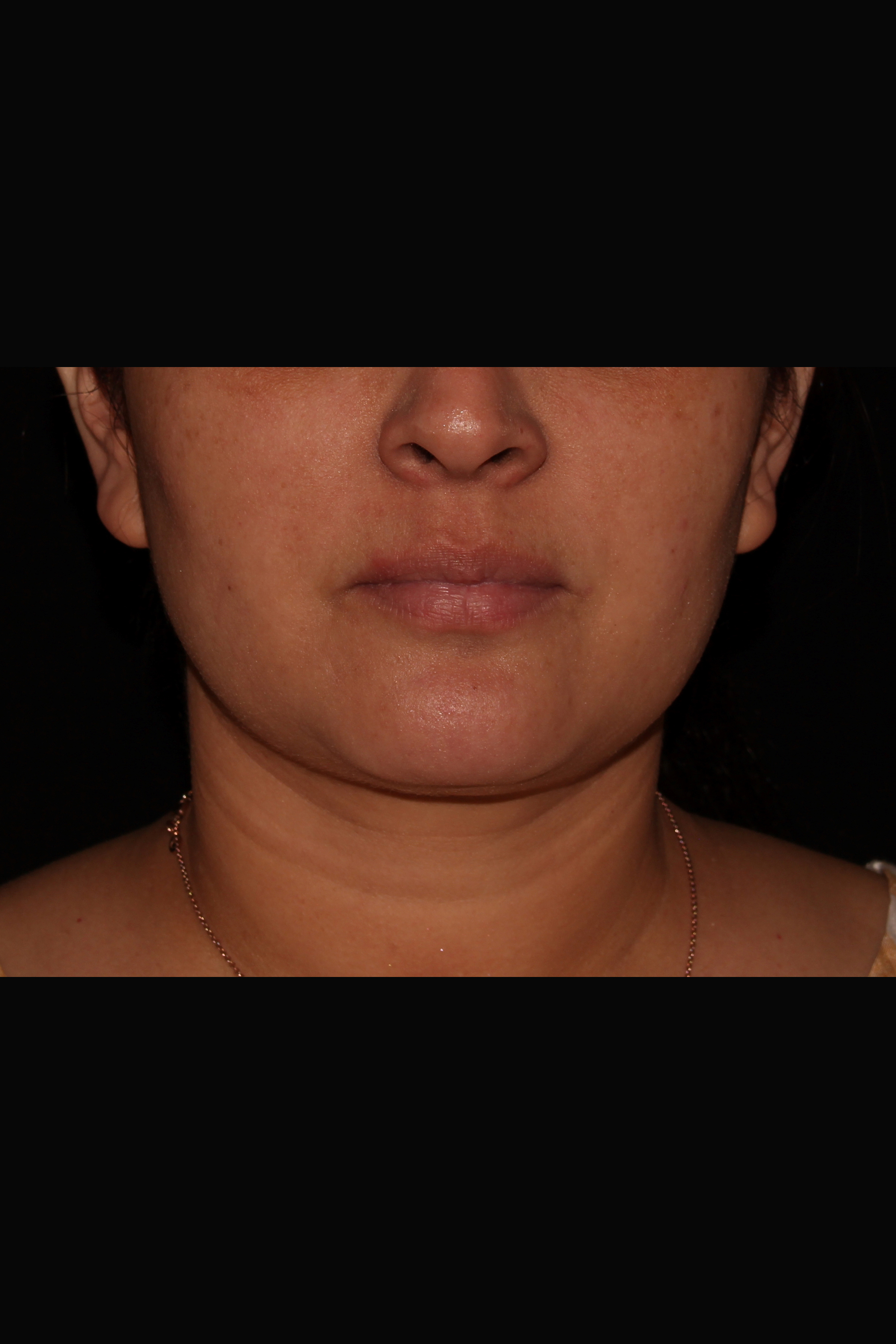 Before Neck Liposuction - Front