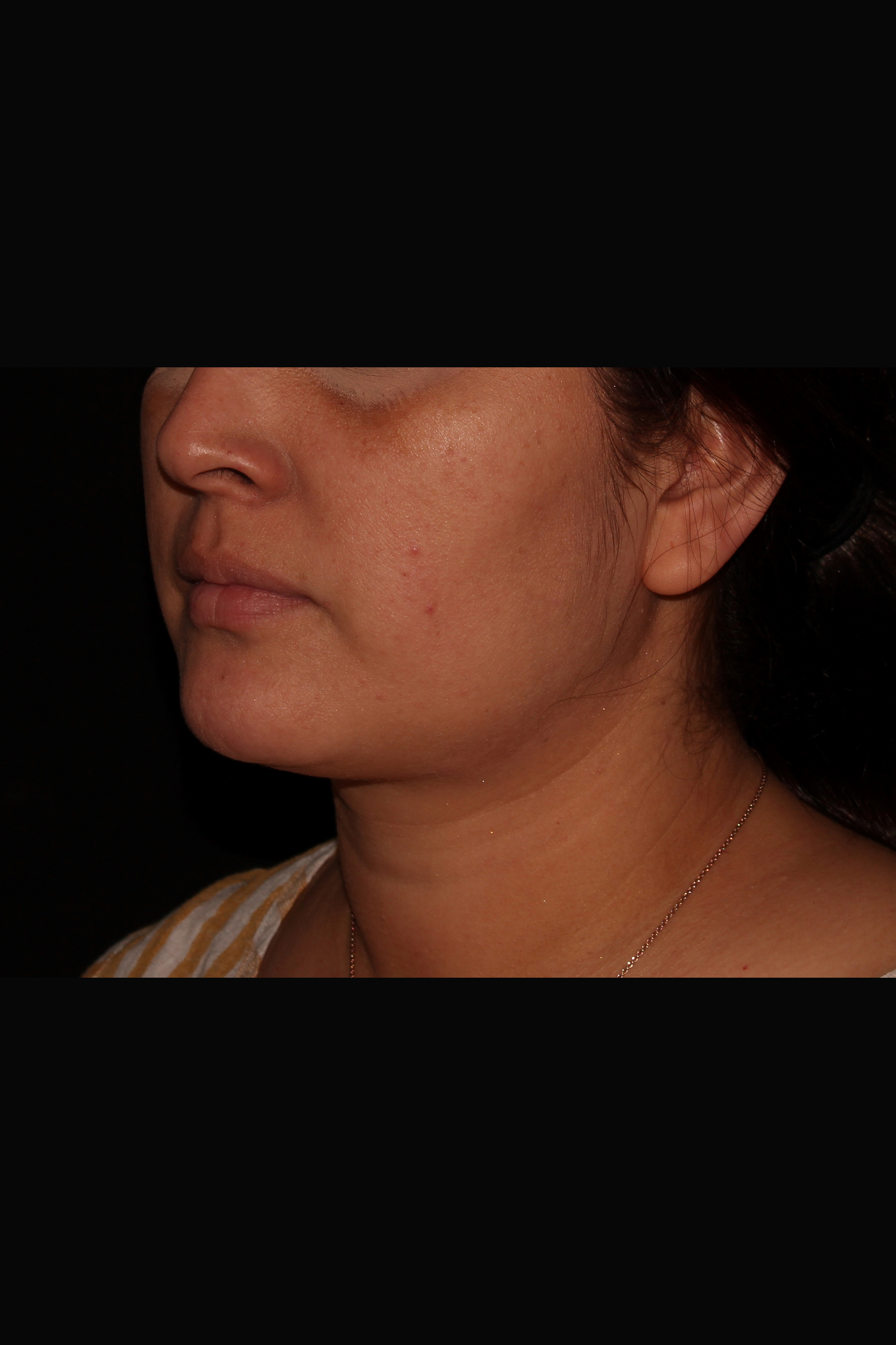 Before Neck Liposuction - Neck Liposuction, Magic Tight & Buccal Fat Pad Removal