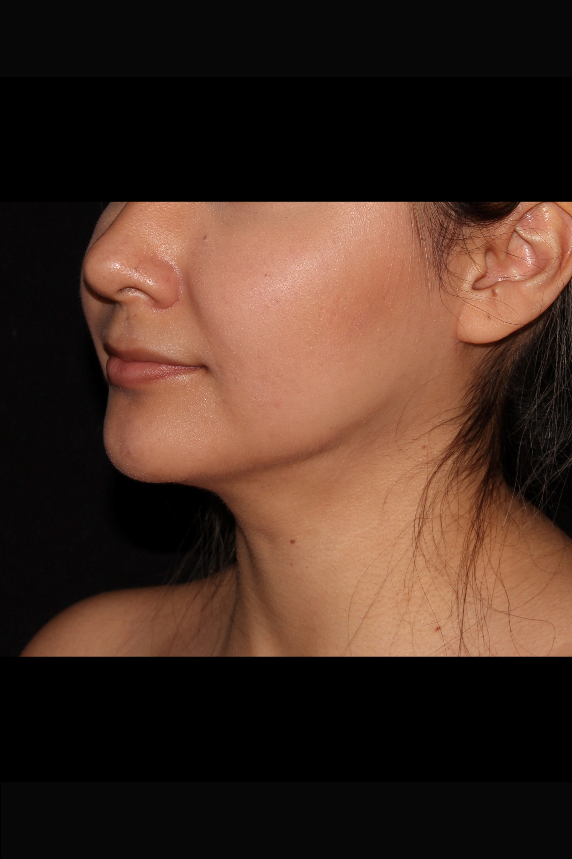 After Neck Liposuction - Chin liposuction