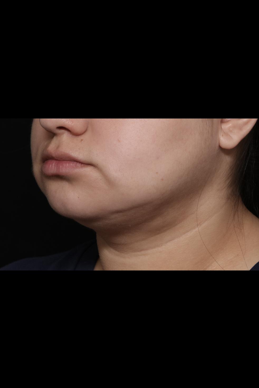After Neck Liposuction - Oblique