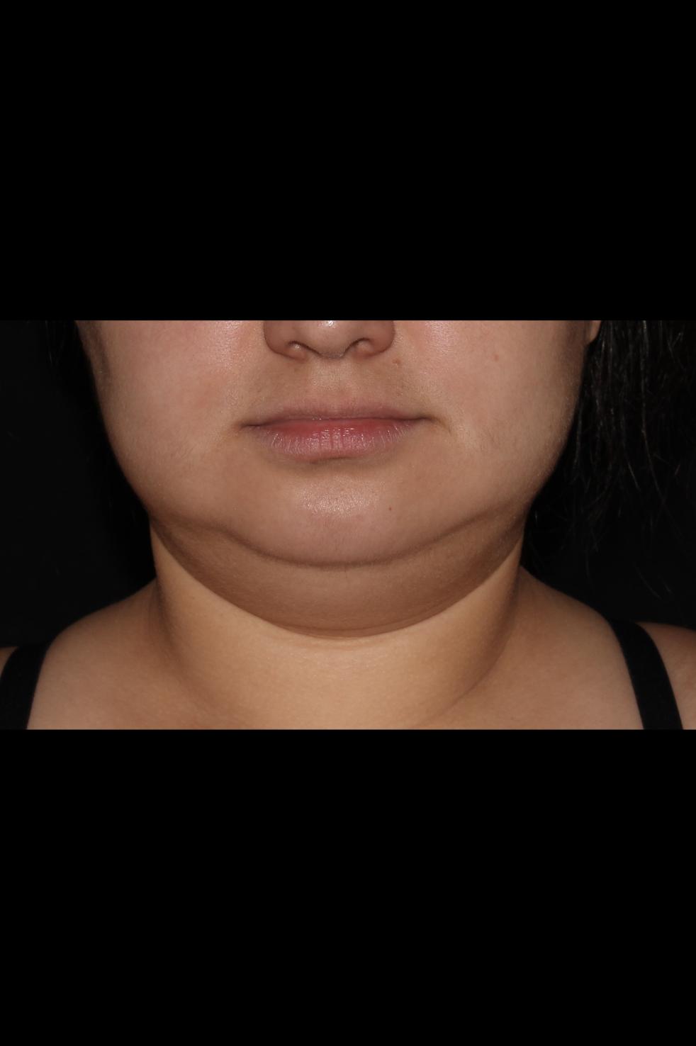 Before Neck Liposuction - Chin liposuction & Magic Tight®