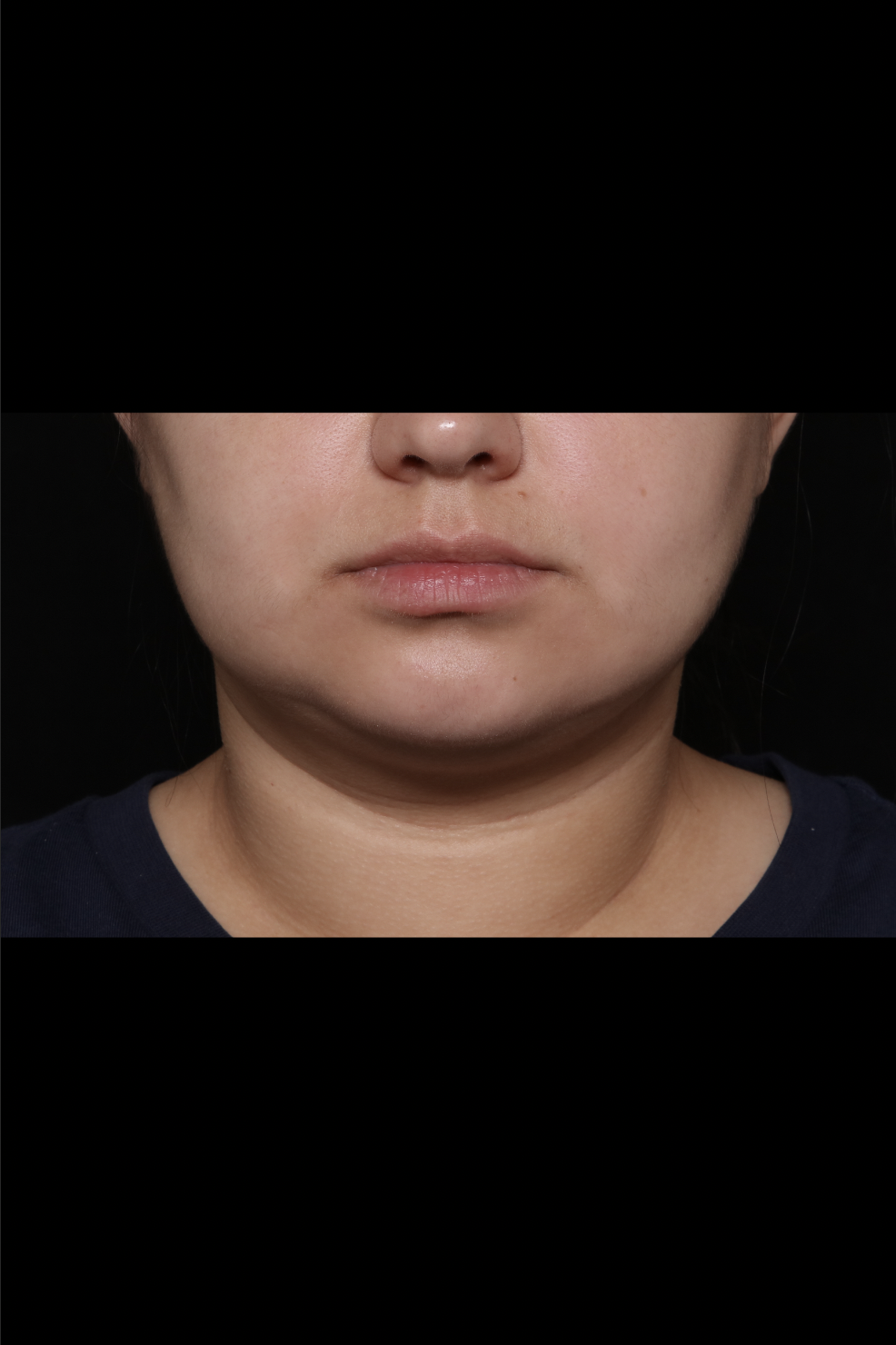 After Neck Liposuction - Chin liposuction & Magic Tight®