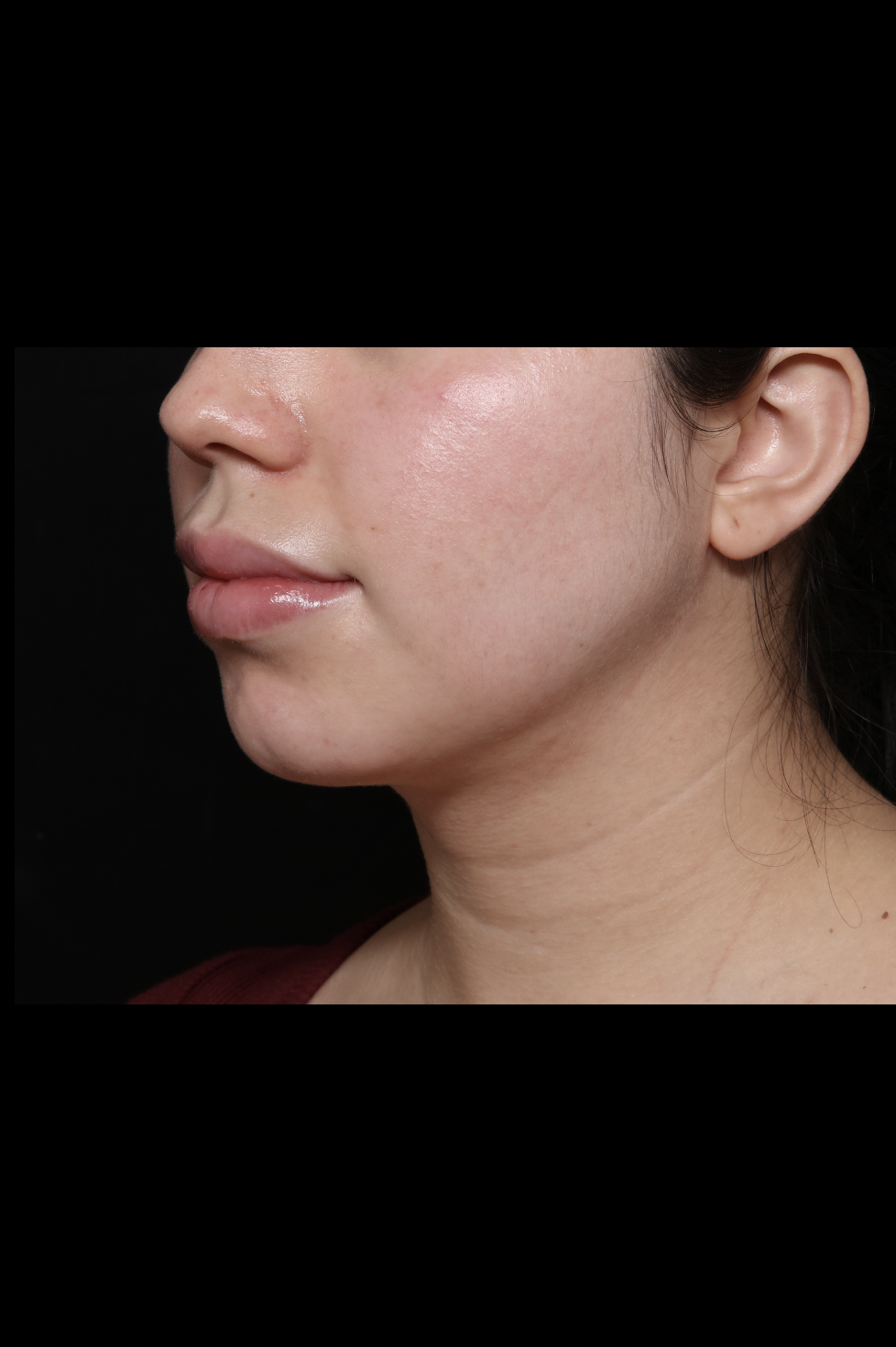 After Neck Liposuction - Facial Transformation