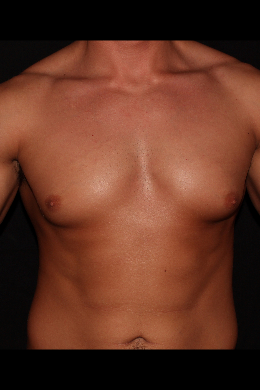 Before Gynecomastia - Front