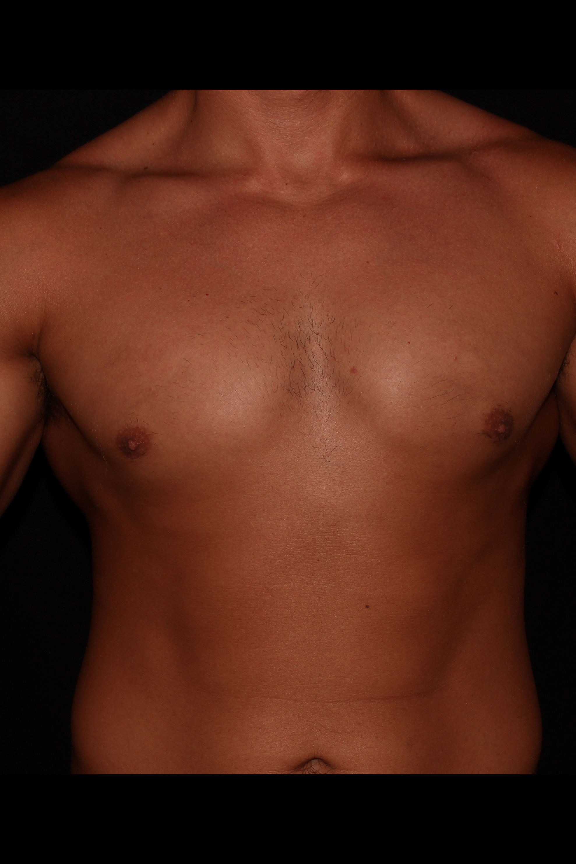 After Gynecomastia - Front
