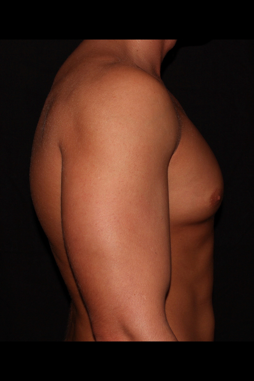 Before Gynecomastia - Side