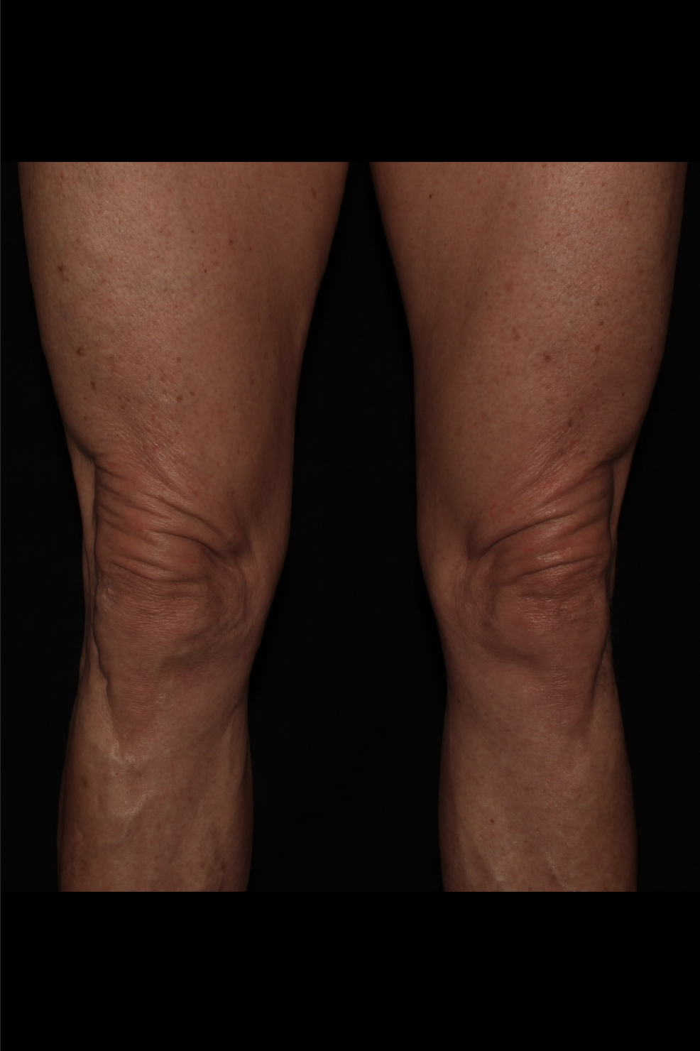 Before Thighs Procedure - Knee Lift - Excess Skin Removal
