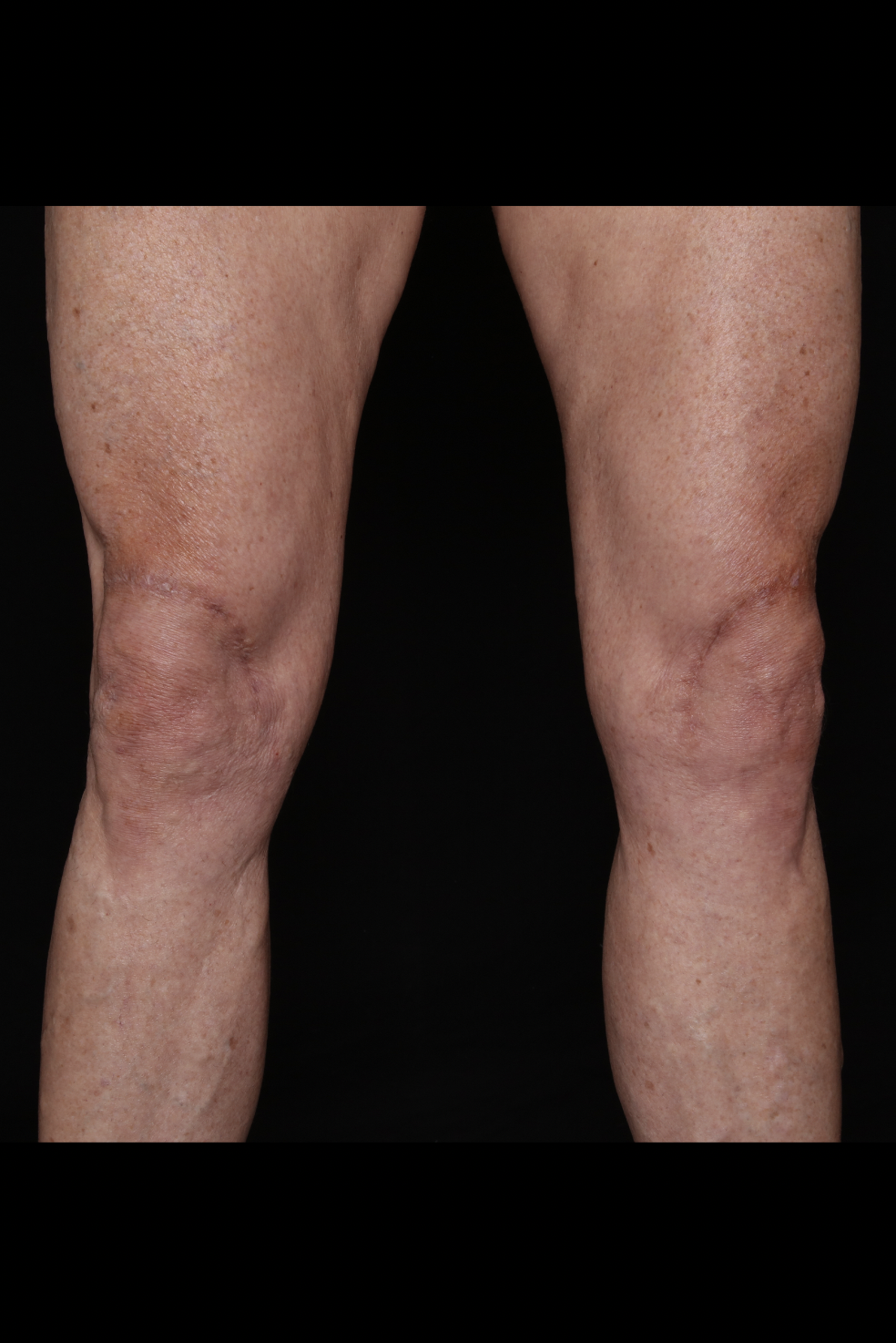 After Thighs Procedure - Knee Lift - Excess Skin Removal