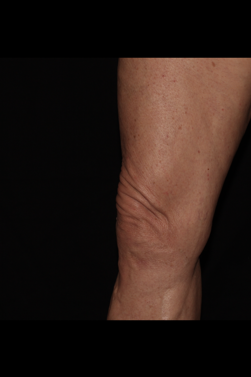 Before Thighs Procedure - Side View