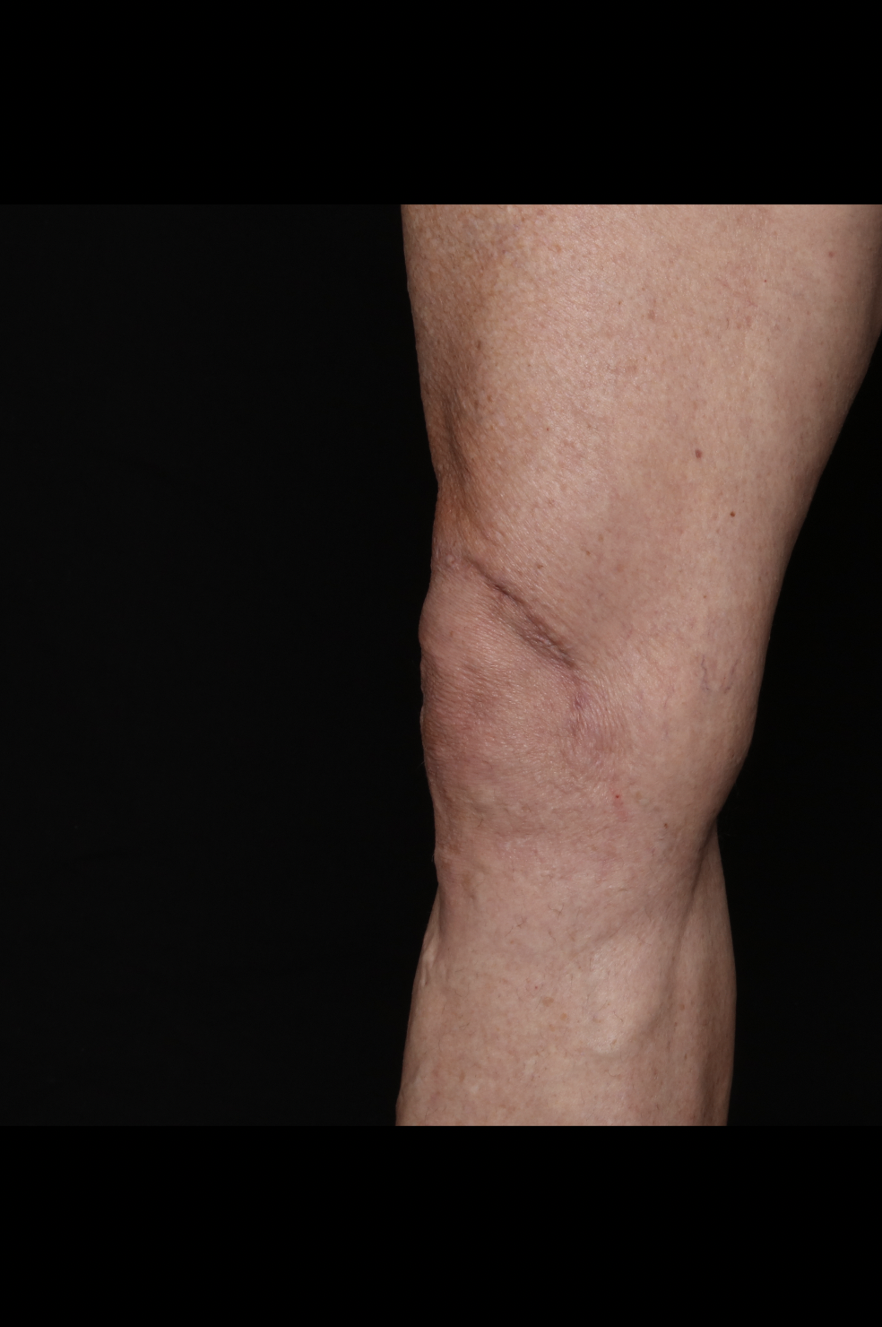 After Thighs Procedure - Side View