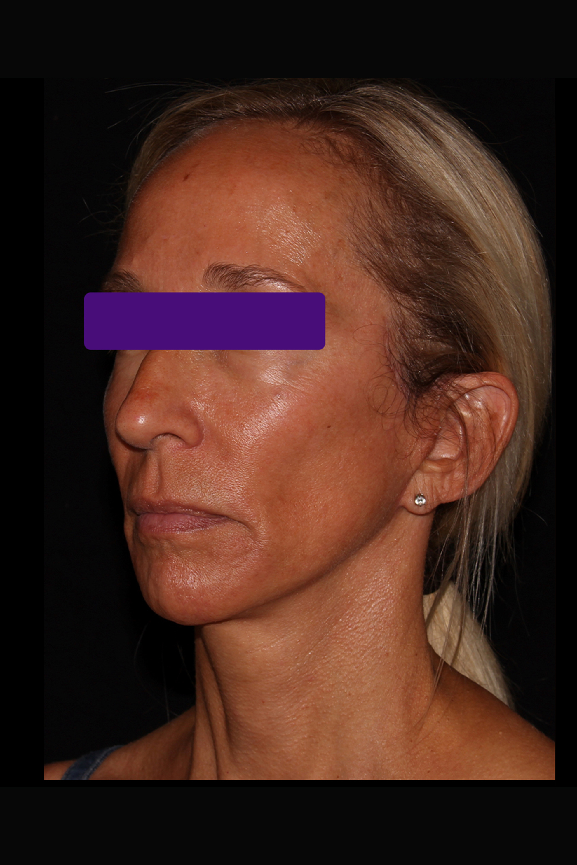 After Facelift - Less than 6 months post-op