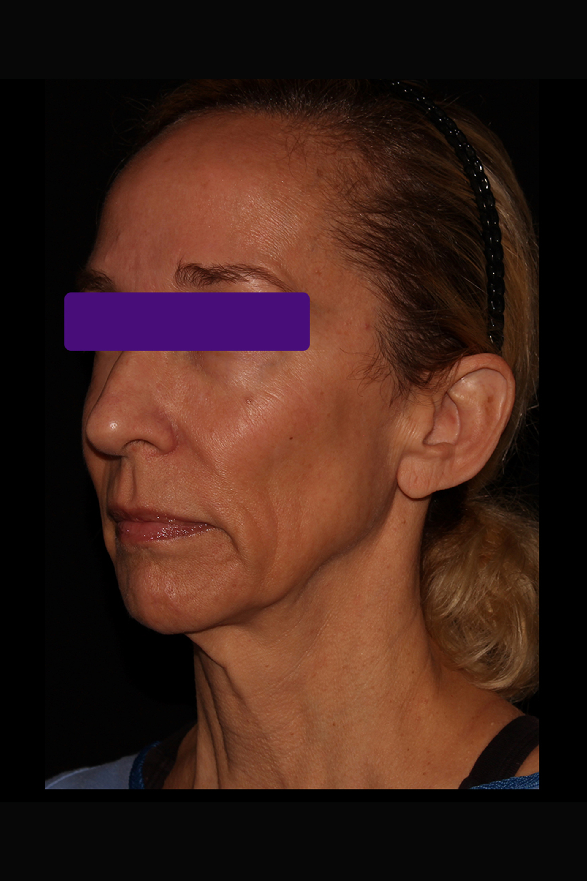 Before Facelift - Less than 6 months post-op