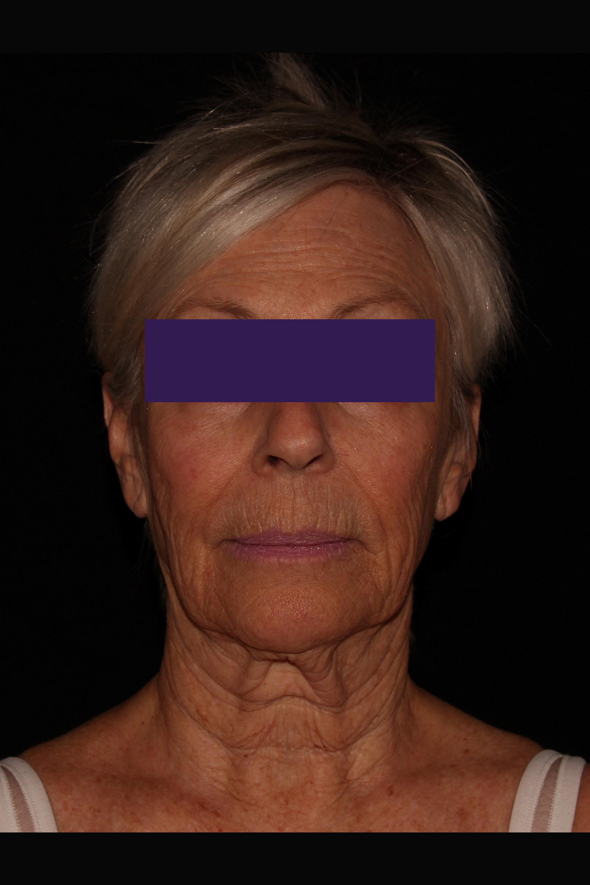 Before Facelift - Facelift & Necklift