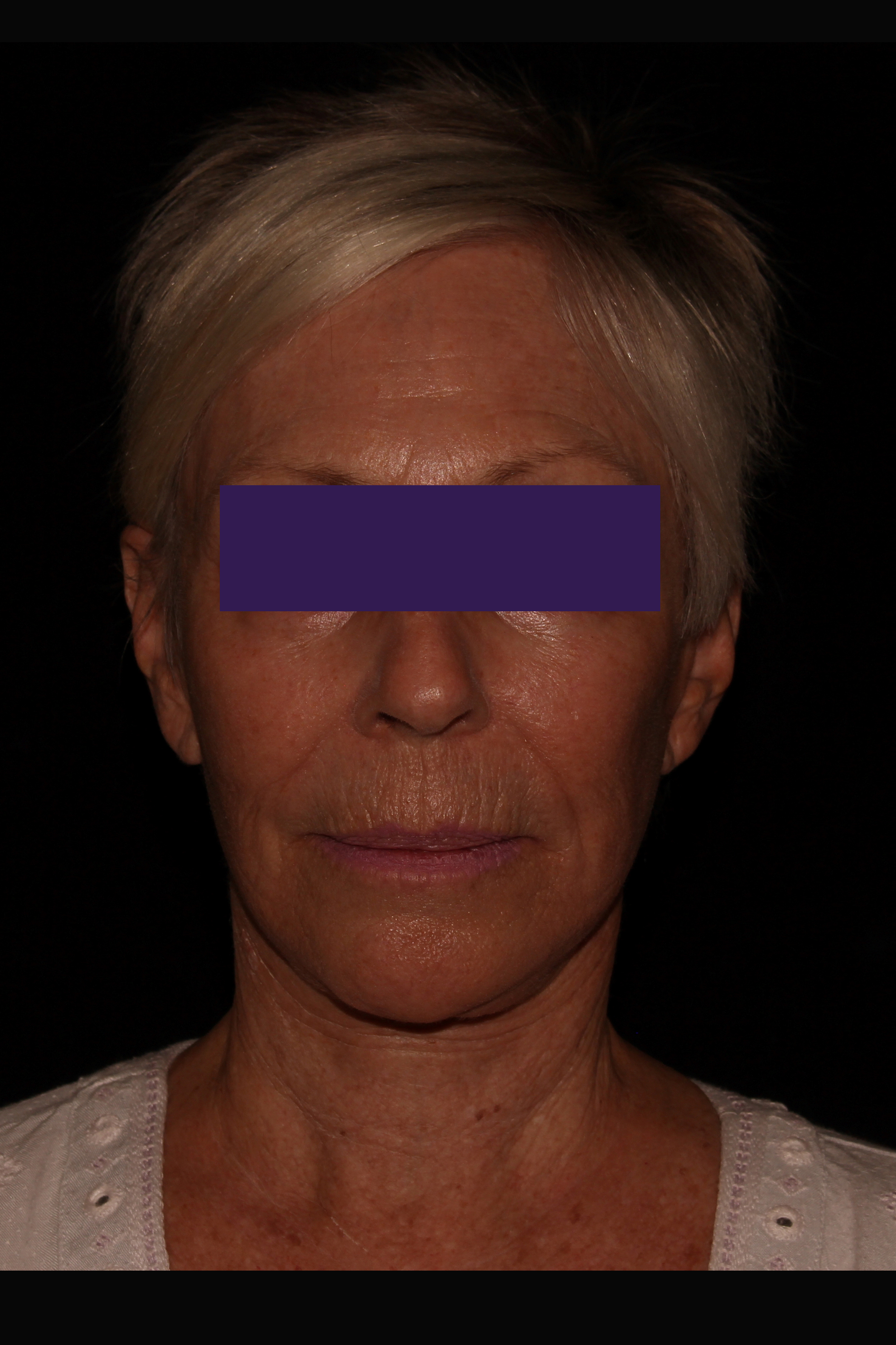 After Facelift - Facelift & Necklift