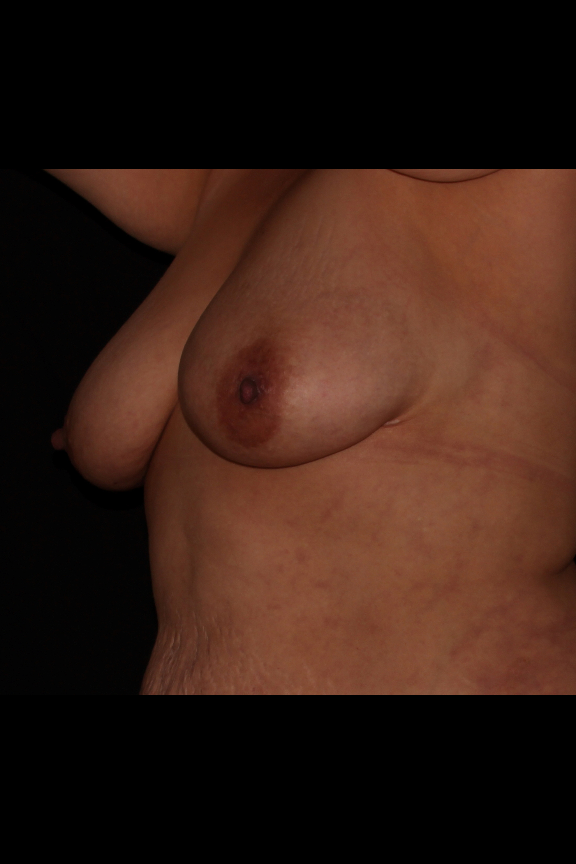 After Fat Transfer to Breast - Fat transfer to the breast
