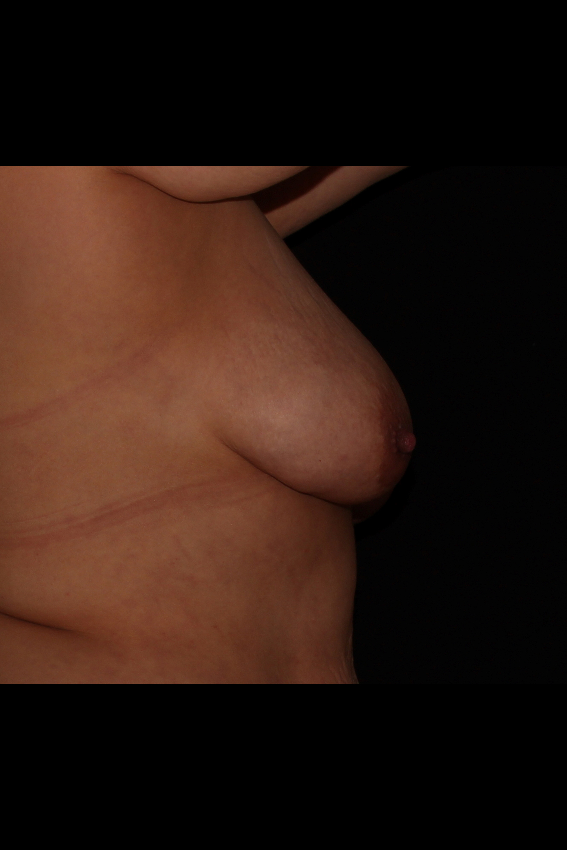 After Fat Transfer to Breast