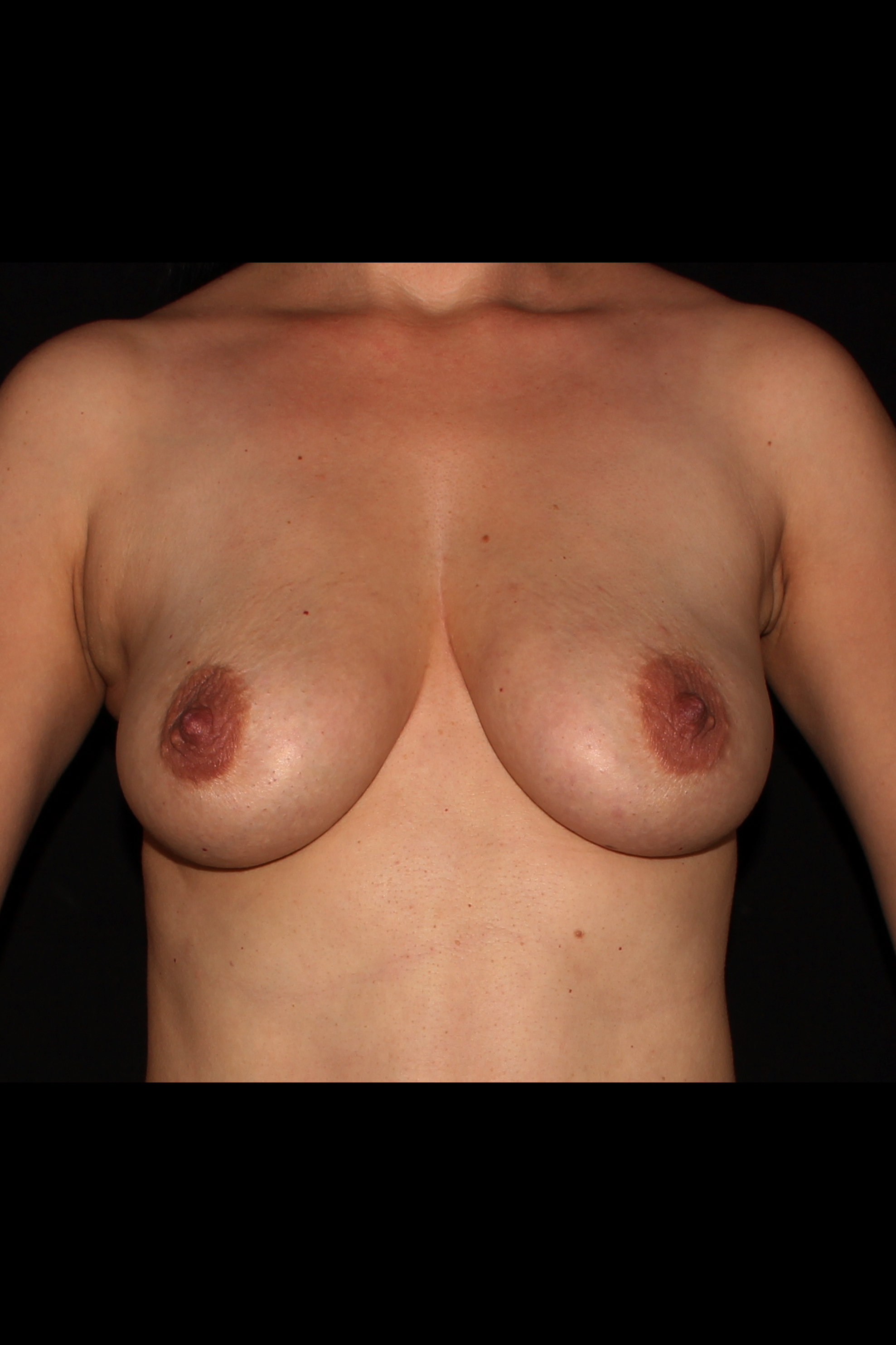 After Fat Transfer to Breast - Breast Augmentation with Fat Transfer