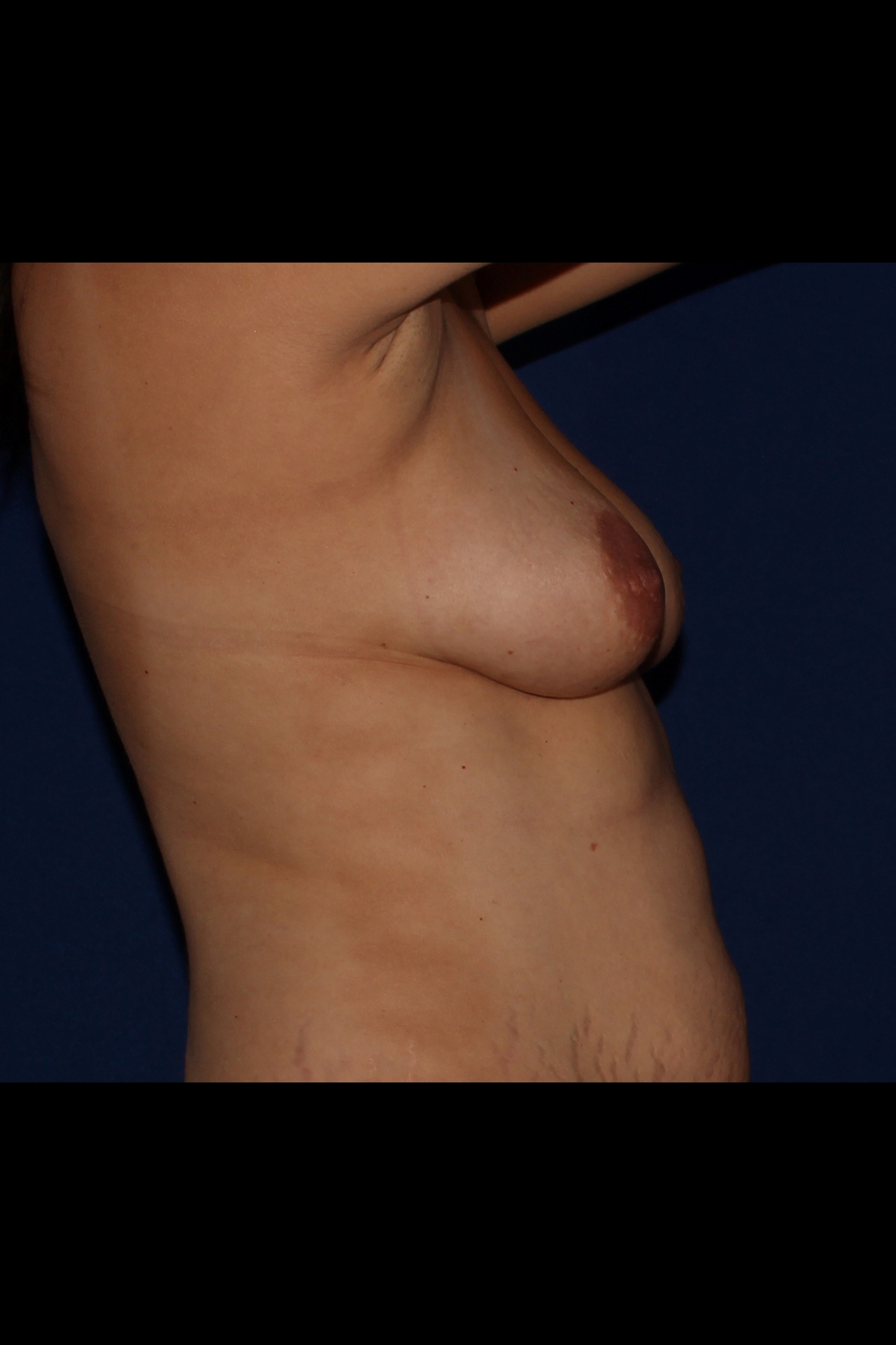 Before Fat Transfer to Breast