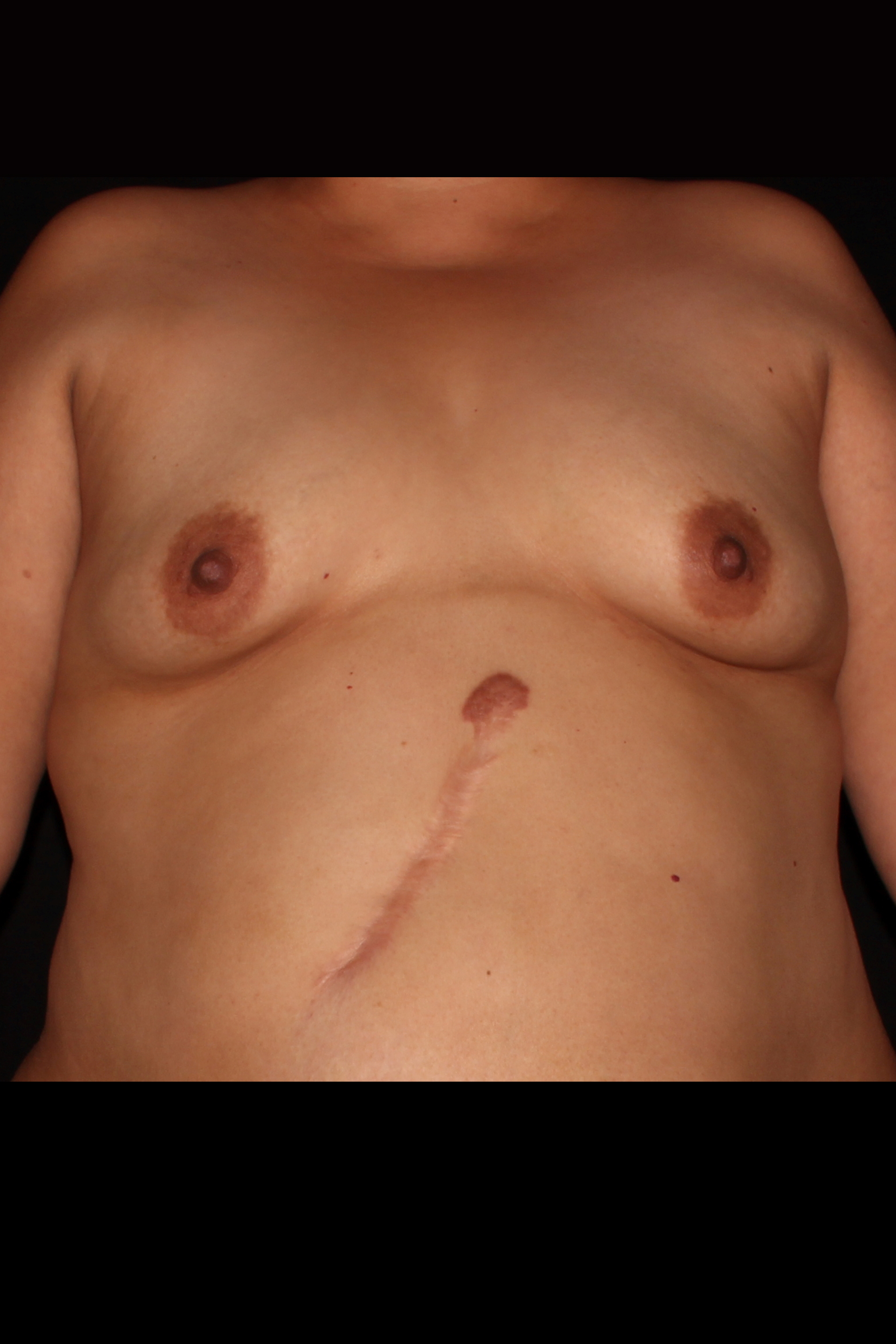 Before Fat Transfer to Breast - Breast Augmentation with Fat Transfer