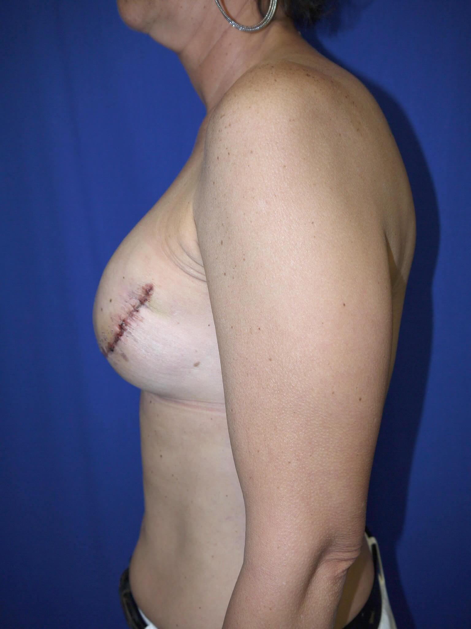Breast Reconstruction After - Mastectomy breast recons in AZ