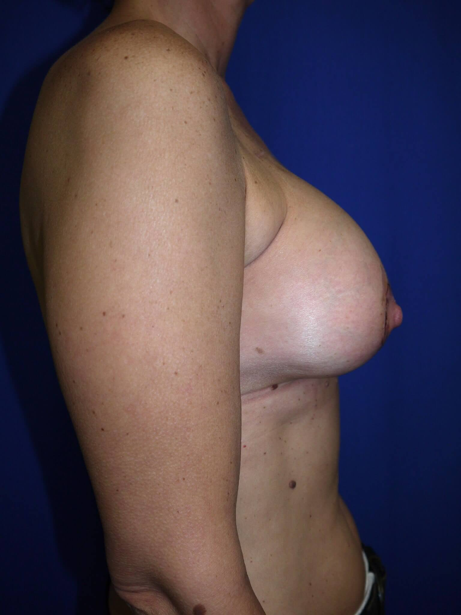 Breast Reconstruction After - Scottsdale AZ breast recon