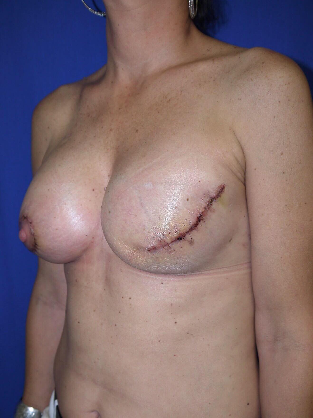 Breast Reconstruction After - Scottsdale breast recon