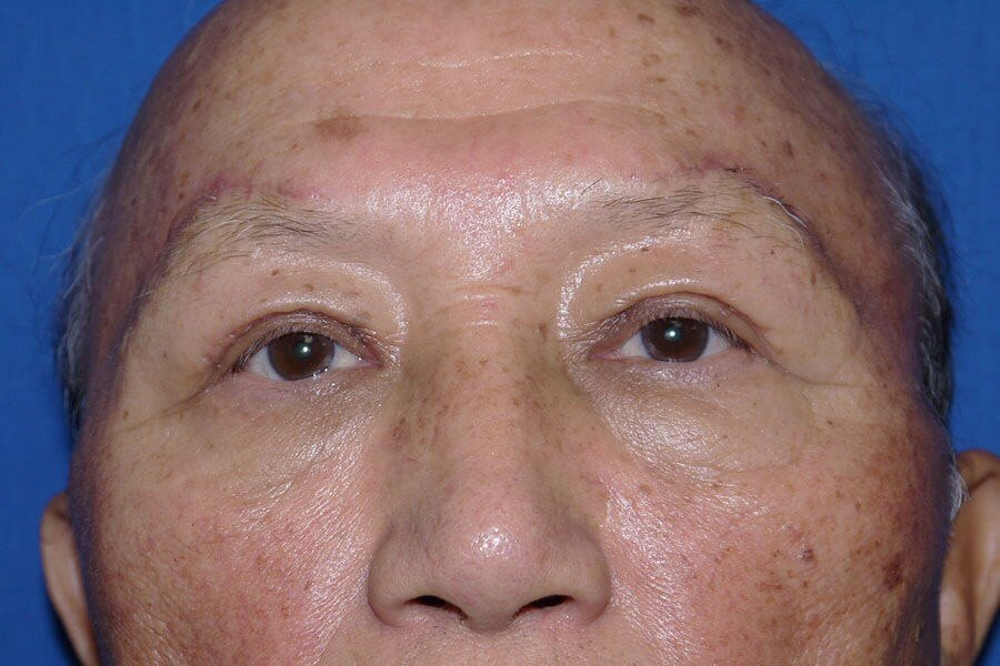 Brow Lift After - Front View